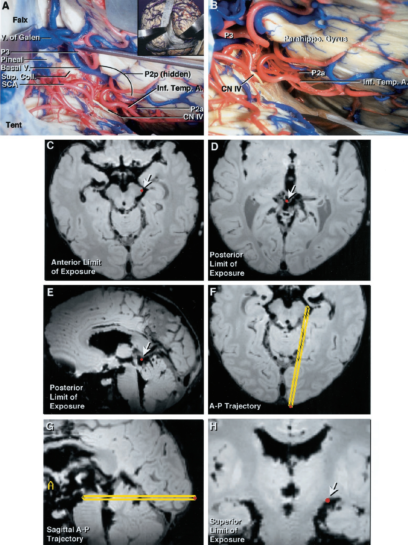 Figure 4. Right occipital transtentorial approach. A, specimen showing posterior view, in which the inset demonstrates the route of the exposure. The tentorium was divided adjacent to the straight sinus. The exposure included the P2a, P2p, P3, pineal gland, colliculi, superior cerebellar artery, basal vein and vein of Galen, trochlear nerve, and inferior temporal branches of the PCA. B, specimen showing enlarged view above the cerebellum into the ambient cistern. The approach is directed lateral to the apex of the cerebellar vermis. The P2a has ascended to be hidden above the medial edge of the parahippocampal gyrus in the upper part of the ambient cistern. The P3 re-emerges in the quadrigeminal cistern. C–G, Stealth magnetic resonance imaging scans demonstrating the limits (arrows) of exposure. C, anterior limit of exposure is the back edge of the crural cistern. D and E, approach provides excellent exposure of the quadrigeminal cistern. F, working distance to the deepest point of exposure in the six hemispheres averaged 8 cm. G, trajectory of approach to the anterior limit of exposure. H, superior limit of exposure in ambient cistern. Basal V., basal vein; CN IV, trochlear nerve; Inf. Temp. A., inferior temporal artery; Parahippo. Gyrus, parahippocampal gyrus; Pineal, pineal gland; SCA, superior cerebellar artery; Sup. Col., superior colliculus; Tent., tentorium; V. of Galen, vein of Galen. (Images courtesy of AL Rhoton, Jr.)