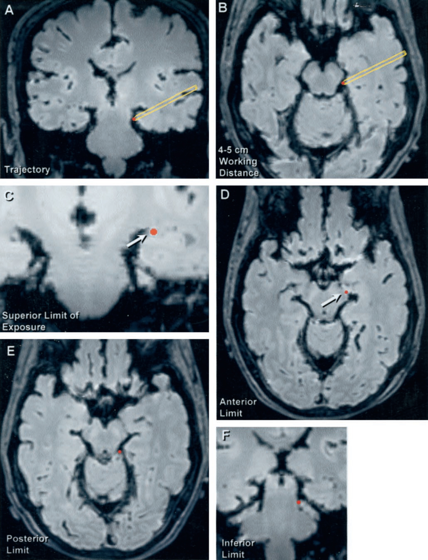 Figure 9. Stealth magnetic resonance imaging scans of the transinsular transchoroidal approach. A and B, trajectory of the approach through the sylvian fissure and inferior limiting sulcus to the ambient cistern. C, superior limit of the exposure through the choroidal fissure to the ambient cistern. D, anterior limit of the exposure at the inferior choroidal point in the posterior end of the crural cistern. E, posterior limit of exposure, in most hemispheres, at the posterior ambient cistern. F, inferior limit of exposure within the lower part of the ambient cistern. Note how the superior-to-inferior trajectory of the transinsular approach allows for greater inferior exposure of the ambient cistern than through the transtemporal transchoroidal approach as illustrated in Figure 7. Arrows, the limits of the exposure. (Images courtesy of AL Rhoton, Jr.)