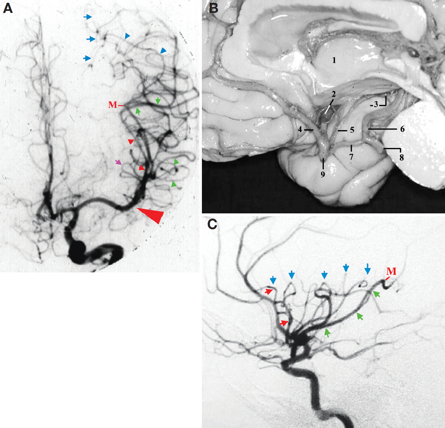 Figure 10. A, carotid angiography, AP view. The small red arrowheads indicate the M2 segment of the MCA. The green arrowheads indicate the M3 segment of the MCA over the planum polare. The green arrows indicate the M3 segment of the MCA over the planum temporale. The blue arrowheads indicate the M4 segment of the MCA over the parietal area. The blue arrows indicate the location of the intraparietal sulcus. The purple arrow indicates the superior limiting sulcus of insula. The large red arrowhead indicates the projection of the location of the tip of the pars triangularis, just distal to the genu of the MCA. B, medial view of the right cerebral hemisphere with the crus cerebri removed to display the trajectory of the M1 segment in this projection. 1, thalamus; 2, M1 segment of the MCA; 3, uncus and the inferior choroidal point; 4, anterior cerebral artery; 5, anterior choroidal artery; 6, P2A segment of posterior cerebral artery; 7, posterior communicating artery; 8, P1 segment of posterior cerebral artery; 9, supraclinoid carotid artery. C, carotid angiography, lateral view. The red arrows indicate anterior limiting sulcus. Blue arrows indicate superior limiting sulcus. The green arrows indicate inferior limiting sulcus. M, sylvian point. (Images courtesy of AL Rhoton, Jr.)