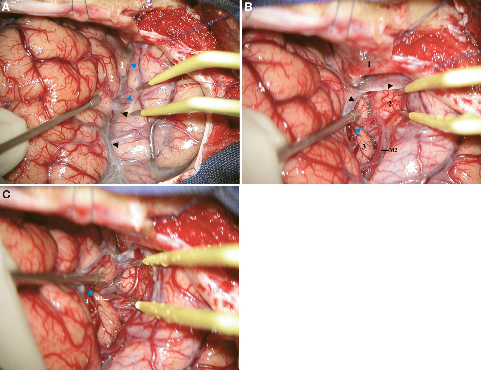 Figure 11. A, intraoperative photograph displaying cerebral exposure after a standard right pterional craniotomy. The tip of the suction tube has retracted the pars triangularis medially. 1, posterior orbital gyrus; 2, lateral orbital gyrus (pars orbitalis). The blue arrowheads indicate frontotemporal arachnoid reflection on the basal surface. The black arrowheads indicate frontotemporal arachnoid reflection on the lateral surface. B, continuation of A. The frontotemporal arachnoid membrane has been split to display the anterior opercular compartment of the sylvian fissure on the basal surface. 1, lesser wing of the sphenoid; 2, planum polare; 3, insular apex. The posterior orbital gyrus is retracted medially by the tip of the suction tube. The black arrowheads indicate the frontotemporal arachnoid membrane. The blue arrow indicates the beginning of the anterior insular cleft. C, continuation of B. The frontotemporal arachnoid membrane and the anterior opercular compartment have been further split to display the anterior insular compartment. The M1 segment of the MCA courses in the lower part of the anterior operculoinsular compartment (sphenoidal compartment). The blue arrow indicates the anterior insular cleft. (Images courtesy of AL Rhoton, Jr.)