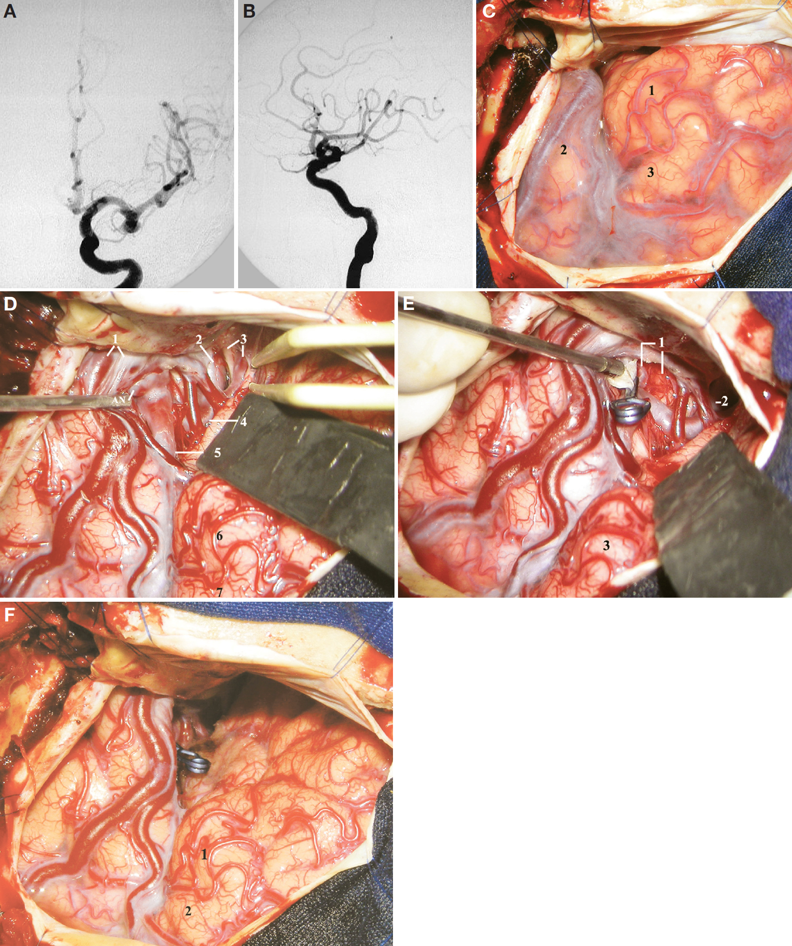 Figure 13. A, AP view of a left carotid angiography depicting an MCA aneurysm pointing downward. B, lateral view of the same angiography shown in A depicting an MCA aneurysm pointing anteriorly and inferiorly. C, surgical exposure after a left pterional craniotomy followed by the dural opening. 1, pars orbitalis; 2, superior temporal gyrus; 3, pars triangularis. D, intraoperative photograph. The sylvian fissure was split proximal to the pars orbitalis to expose the aneurysm. 1, superficial sylvian veins; 2, supraclinoid carotid artery; 3, optic nerve and anterior cerebral artery; 4, M1 proximal to the aneurysm; 5, MCA distal to the aneurysm; 6, pars orbitalis; 7, pars triangularis. The olfactory tract is located beneath the tip of the bipolar forceps. E, the aneurysm shown in D was clipped and the dome opened and cut (at the tip of the suction tube). 1, temporal branch of the MCA and the planum polare; 2, carotid artery; 3, pars orbitalis. F, overall view of the surgical exposure after aneurysm clipping. Note the location of the clip (which indicates the location of the aneurysm) and the location of the pars triangularis (which indicates approximately the location of the insular apex, just distal to the insular pole and to the genu of the MCA). 1, pars orbitalis; 2, pars triangularis. (Images courtesy of AL Rhoton, Jr.)