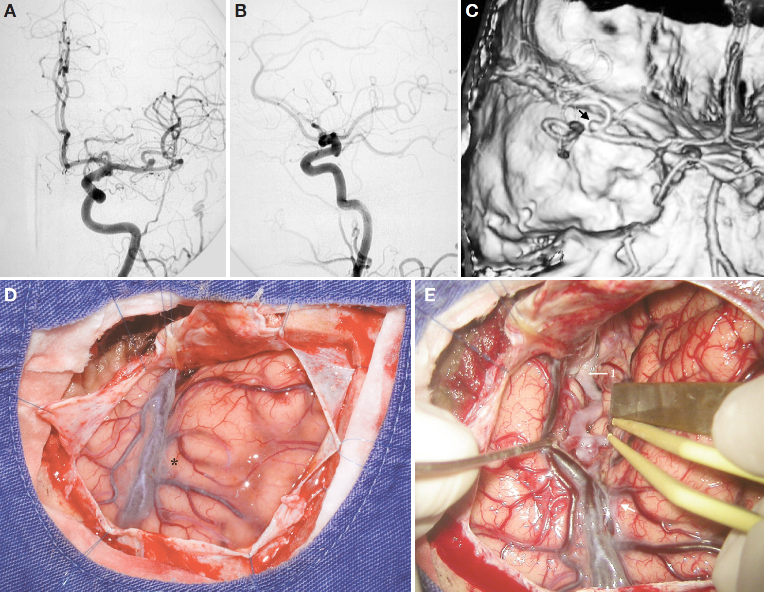 Figure 14. A, AP view of a left carotid angiography depicting an MCA aneurysm arising proximal to the genu of the MCA, in the distal half of the M1 and pointing superiorly in this projection. B, lateral projection of the same carotid angiography shown in A. Because of the superimposition of the vessels, it is difficult to visualize the aneurysm. C, Angiography-CT depicting the aneurysm (arrow) shown in A. D, surgical exposure after a left pterional craniotomy and dural opening. Asterisk, pars triangularis. E, the sylvian fissure was split just proximal to the tip of the pars triangularis (arrow). Note the distance between the aneurysm and the tip of the pars triangularis (arrow). The carotid bifurcation is located at the level of the tip of the spatula. 1, supraclinoid carotid artery. (Images courtesy of AL Rhoton, Jr.)