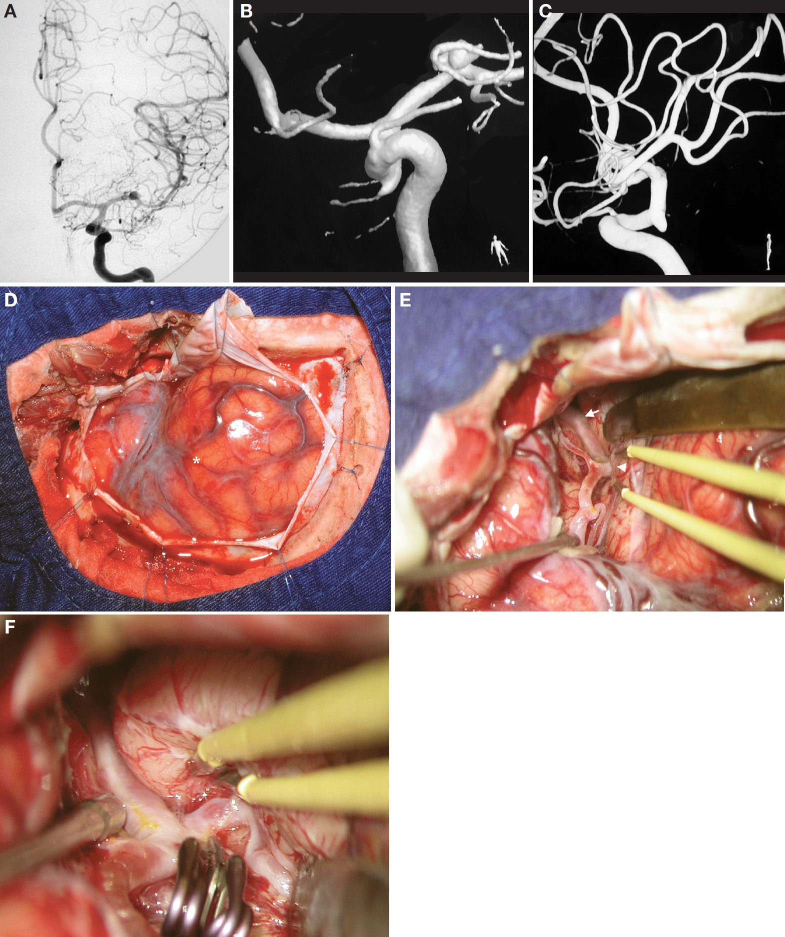 Figure 15. A, AP view of a left carotid angiography depicting an MCA aneurysm arising approximately midway between the carotid bifurcation and the genu of the MCA. B, angiography-computed tomographic (CT) scan with 3-dimensional reconstruction showing the same aneurysm. C, angiography-CT scan with 3-dimensional reconstruction, lateral view. D, exposure after a left pterional craniotomy and dural opening. asterisk, pars triangularis. E, the sylvian fissure was split proximal to the pars triangularis (asterisk). Arrow indicates the carotid bifurcation. The arrowhead indicates the location of the aneurysm. Note the distance between the pars triangularis and the location of the aneurysm. F, the aneurysm was clipped, and the frontal branch of the MCA bifurcation was identified. (Images courtesy of AL Rhoton, Jr.)