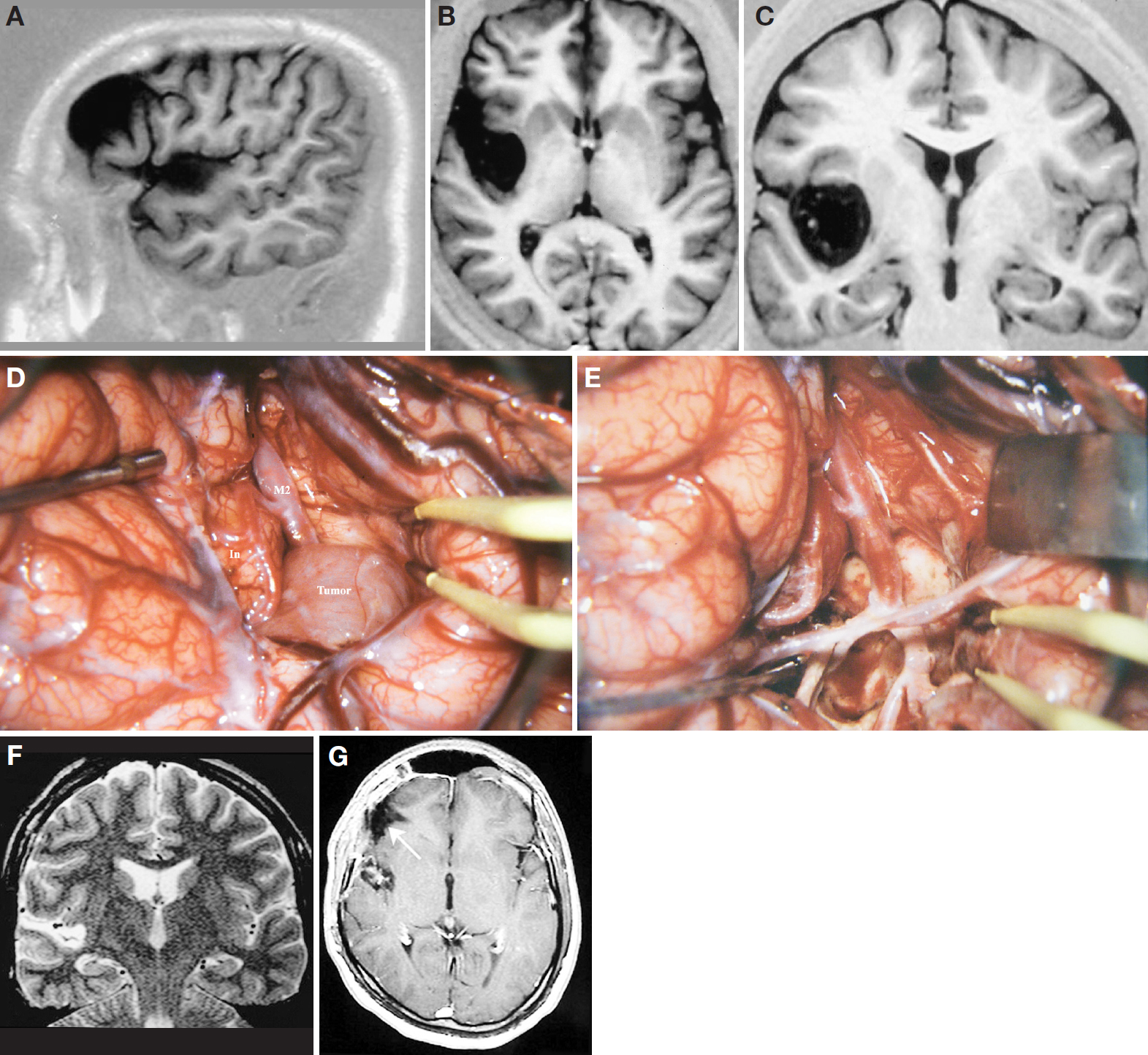 Figure 17. A, sagittal MRI scan of the right hemisphere, depicting an insular tumor and a frontal arachnoidal cyst. B, axial MRI scan. The tumor occupies the posterior two-thirds of the insula, sparing the first 2 short gyri (anterior and middle short gyri) and also sparing the posterior long gyrus. The tumor is limited medially by the lentiform nucleus. C, coronal MRI scan. The superior limit of the tumor is located at the same level of the lateral opercular compartment of the sylvian fissure. D, surgical exposure after an extended right pterional craniotomy, followed by the dural opening and the sylvian fissure splitting. M2, insular segment of the MCA; In, insula. Note that the tumor has encased the MCA. E, final aspect of the brain after tumor removal. The branches of the MCA were preserved. The whitish color of the arteries was owing to frequent application of the papaverine to prevent vasospasm. F, postoperative coronal MRI scan performed 8 months after surgery. G, postoperative axial MRI scan performed 8 months after surgery. The arrow indicates the frontal resection. (Images courtesy of AL Rhoton, Jr.)