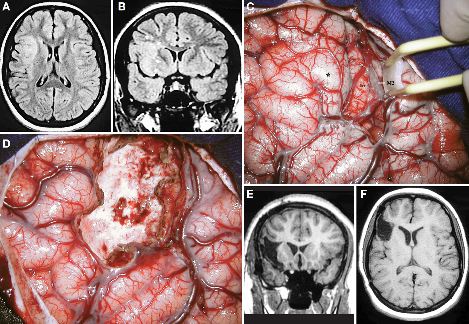 Figure 18. A, axial MRI scan. B, coronal MRI scan at the anterior part of the insula. Note that the superolateral insular cleft on the right side is lacking. Arrows indicate the cortical dysplasia. C, surgical exposure after right pterional craniotomy, dural opening, and sylvian fissure splitting. M2, insular segment of the MCA; In, insula. Asterisk, cortical dysplasia. D, intraoperative photograph after the removal of the cortical dysplasia. E, postoperative coronal MRI scan showing the resection of the cortical dysplasia. F, postoperative axial MRI scan. (Images courtesy of AL Rhoton, Jr.)