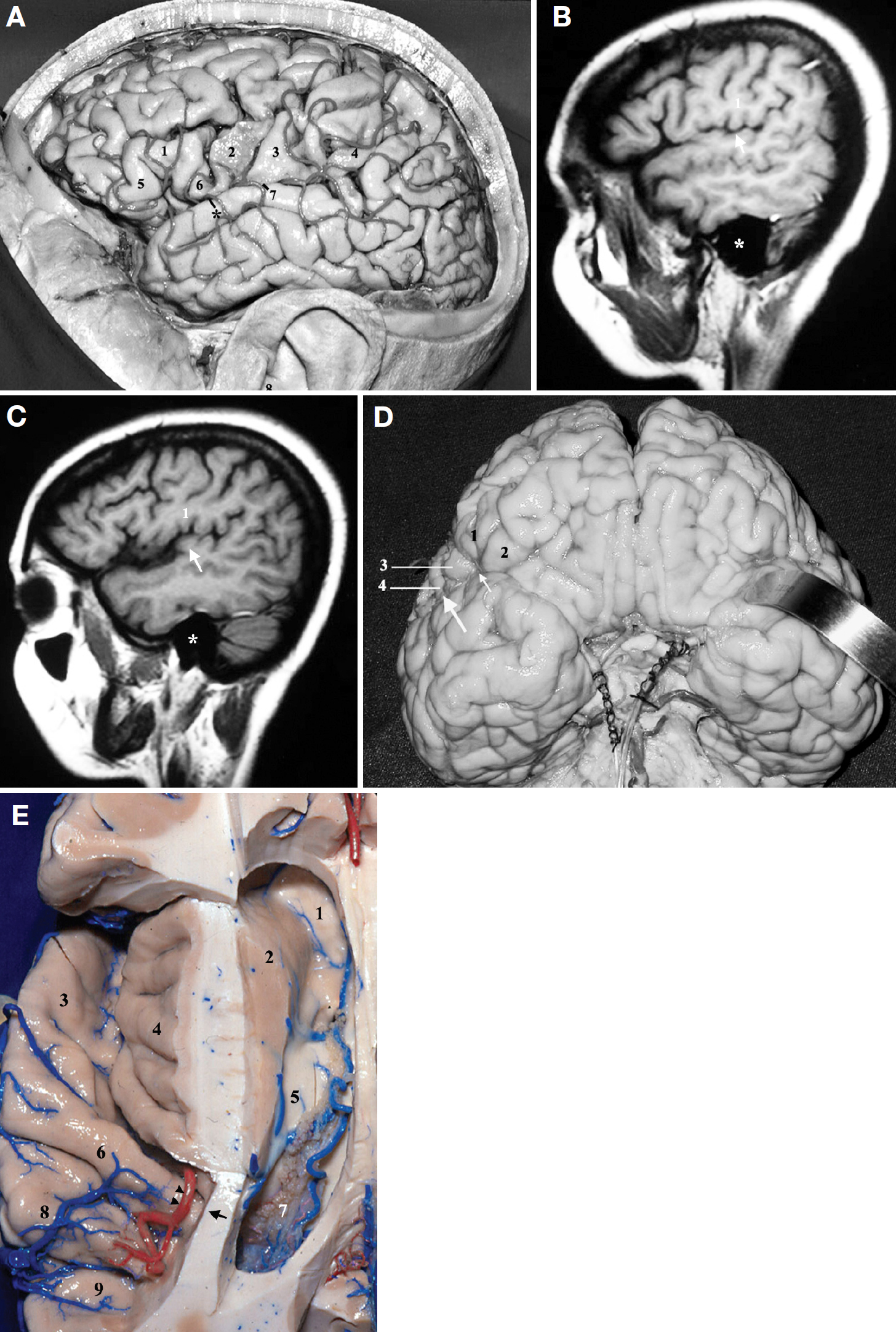 Figure 2. A, lateral view of the left cerebral hemisphere. 1, pars triangularis of the inferior frontal gyrus; 2, precentral gyrus; 3, postcentral gyrus; 4, supramarginal gyrus; 5, pars orbitalis; 6, pars opercularis; 7, junction between the superior temporal gyrus and the Heschl's gyrus; 8, external acoustic meatus. Asterisk, at this point, the planum polare starts to deviate medially. Note the large space in the sylvian fissure between the structures 1, 5, and 6. B, sagittal magnetic resonance imaging (MRI) scan at the surface of the left hemisphere. 1, postcentral gyrus. Asterisk, projection of the external acoustic meatus over the petrous temporal bone. Heschl's gyrus (arrow). C, sagittal MRI scan at the opercular level of the left hemisphere. 1, postcentral gyrus. Asterisk, projection of the external acoustic meatus over the petrous temporal bone. Heschl's gyrus (arrow). D, anterobasal view of the cerebrum. 1, pars triangularis; 2, pars orbitalis; 3, pars opercularis; 4, precentral gyrus. The large arrow indicates where the medial deviation of the planum polare begins. The small arrow indicates where the medial deviation of the planum polare intensifies. E, superior view of the left hemisphere. An axial cut has been made to expose the lateral ventricle. The frontal and parietal opercula have been removed to expose the insula and the temporal opercula. 1, rostrum of the corpus callosum; 2, head of the caudate nucleus; 3, planum polare; 4, insula; 5, thalamus; 6, Heschl's gyrus; 7, choroid plexus of the atrium of the lateral ventricle covering the pulvinar of the thalamus; 8, middle transverse temporal gyrus; 9, posterior transverse temporal gyrus. The arrow indicates the medial end of the Heschl's gyrus that points toward the posterior limb of the internal capsule and toward the atrium of the lateral ventricle. The arrowheads indicate the location of the angiographic sylvian point. (Images courtesy of AL Rhoton, Jr.)