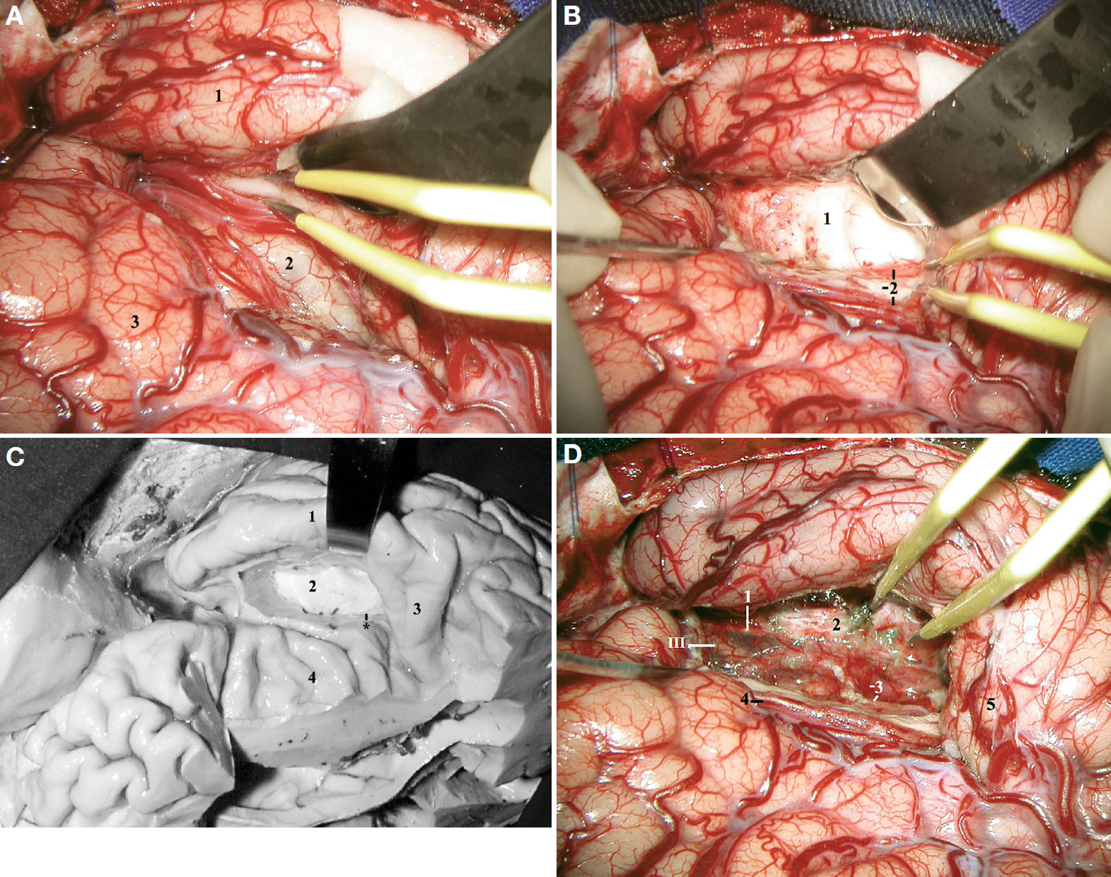 Figure 23. A, intraoperative photograph after an extended right pterional transsylvian approach, depicting the inferior limiting sulcus of the insula (between the tips of the bipolar forceps). 1, temporal lobe; 2, insula; 3, frontal lobe. B, intraoperative photograph after entering the temporal horn. 1, head of the hippocampus; 2, choroid plexus, temporal stem, and the M2 segment of the MCA. The Heschl's gyrus has been retracted posteriorly by the bipolar forceps. C, anatomic dissection mimicking the surgical approach shown in B. 1, superior temporal gyrus; 2, head of the hippocampus; 3, Heschl's gyrus; 4, insula. Asterisk, choroid plexus of the temporal horn. D, intraoperative photograph after a right pterional transsylvian selective amygdalohippocampectomy. 1, free edge of the tentorium; 2, dura mater of the floor of the middle fossa; 3, P2A segment of the posterior cerebral artery, and the choroid plexus of the temporal horn; 4, M2 segment of the MCA; 5, Heschl's gyrus; III, oculomotor nerve. (Images courtesy of AL Rhoton, Jr.)