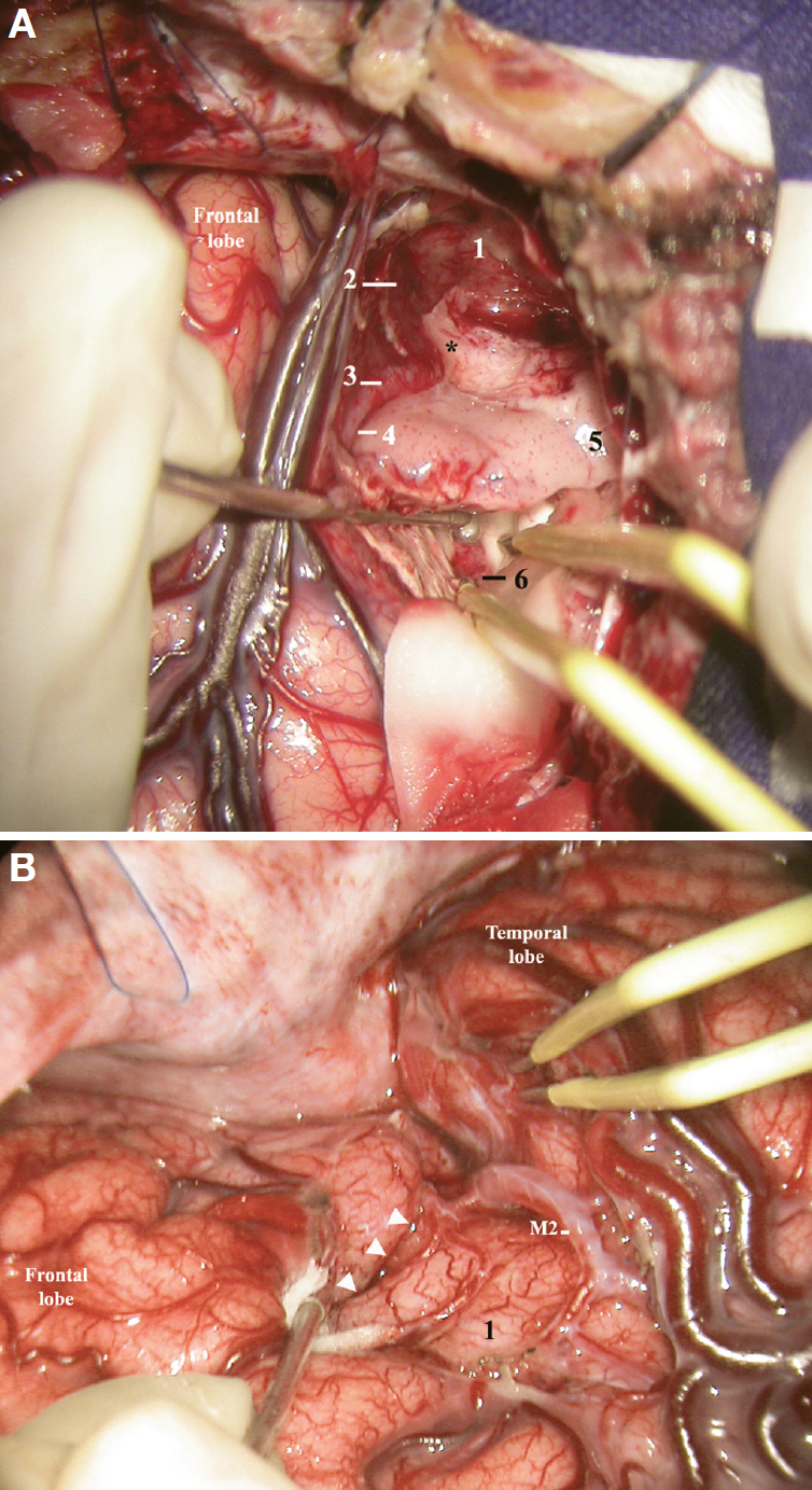 Figure 24. A, intraoperative photograph showing a right amygdalohippocampal resection via superior temporal gyrus. The right temporal horn, superior temporal gyrus, and uncus have been peeled off from the arachnoidal membrane of the sylvian fissure and carotid cistern. The tip of the suction tube (on the left) is located immediately ahead of the inferior choroidal point. Both tips of the bipolar forceps are inside the temporal horn. 1, arachnoidal membrane of the temporal pole; 2, carotid artery (covered by arachnoidal membrane); 3, M1 segment of the MCA just before the genu of the MCA; 4, beginning of the inferior limiting sulcus of the insula; 5, superior temporal gyrus; 6, choroid plexus of the temporal horn. Asterisk, anteromedial surface of the uncus that has been peeled off from the arachnoidal membrane of the carotid cistern. B, intraoperative photograph of the initial phase of a right hemisphere deafferentation (after splitting the sylvian fissure). 1, insula; M2, insular segment of the MCA. The arrowheads indicate anterior insular cleft. (Images courtesy of AL Rhoton, Jr.)