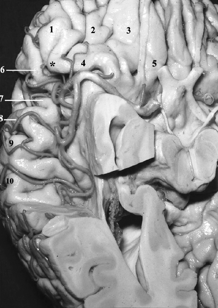 Figure 3.  Basal view of the right hemisphere. The temporal operculum has been removed to expose the frontal and parietal opercula. 1, lateral orbital gyrus; 2, anterior orbital gyrus; 3, medial orbital gyrus; 4, posterior orbital gyrus; 5, rectus gyrus; 6, pars triangularis; 7, pars opercularis; 8, precentral gyrus; 9, postcentral gyrus; 10, supramarginal gyrus. Asterisk, pars orbitalis. (Images courtesy of AL Rhoton, Jr.)