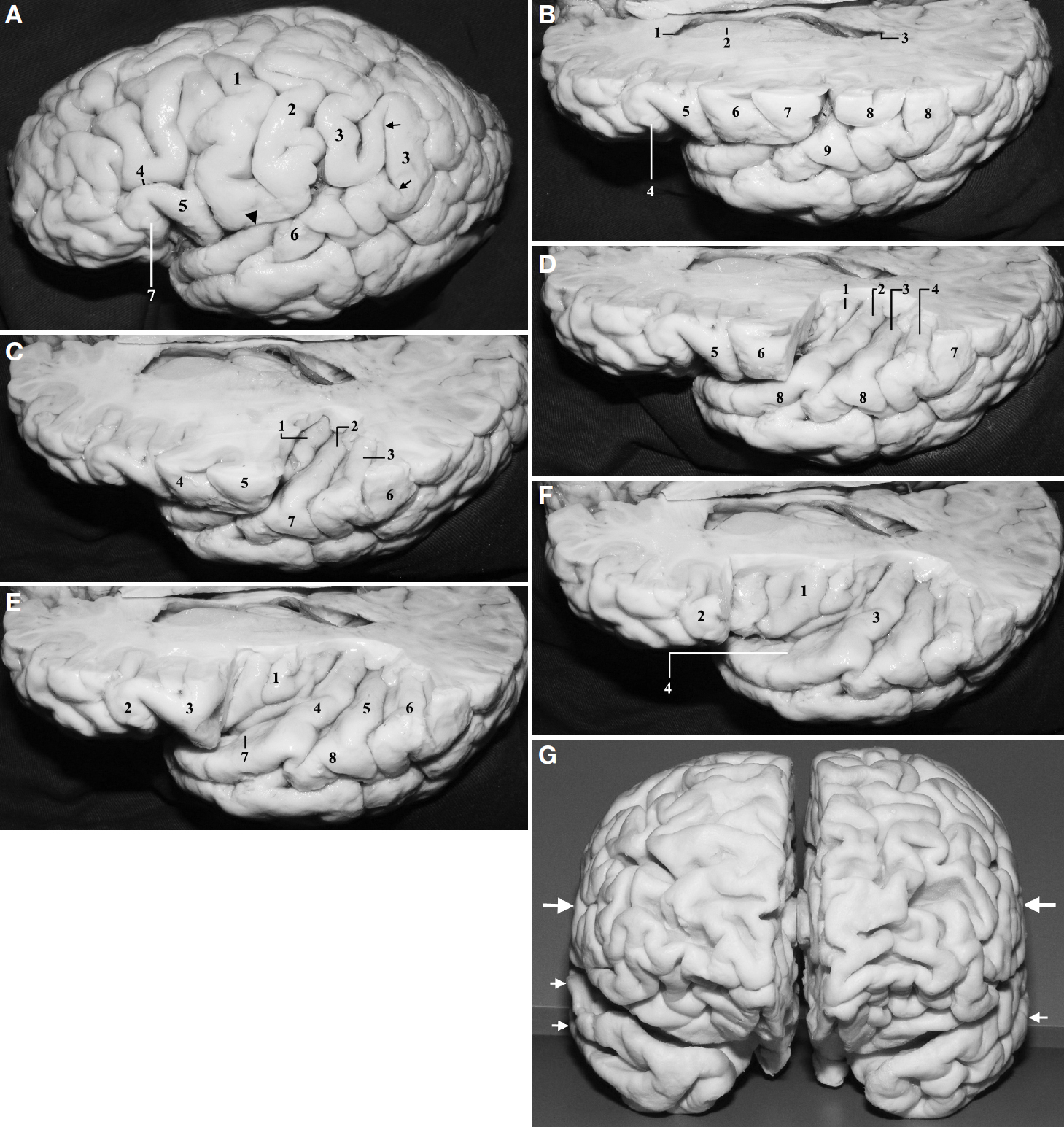 Figure 4. A, superolateral view of the left hemisphere. 1, precentral gyrus; 2, postcentral gyrus; 3, supramarginal gyrus; 4, inferior frontal sulcus; 5, pars opercularis of the inferior frontal gyrus; 6, superior temporal gyrus; 7, pars triangularis of the inferior frontal gyrus. The arrows indicate the ascending and descending terminal branches of the posterior ramus of the sylvian fissure. The arrowhead indicates posterior ramus of the sylvian fissure. The largest transverse diameter of the cerebrum usually corresponds to the level of postcentral gyrus and to the middle and the superior temporal gyri (at the level of the postcentral gyrus). B, superolateral view of the same specimen shown in A. A transverse cut has been made by following a line drawn from the base of the pars triangularis of the inferior frontal gyrus to the supramarginal gyrus, immediately above the posterior ramus of the sylvian fissure. 1, frontal horn; 2, head of the caudate nucleus; 3, atrium; 4, pars triangularis; 5, pars opercularis; 6, precentral gyrus; 7, postcentral gyrus; 8, supramarginal gyrus; 9, superior temporal gyrus. C, the operculum of the supramarginal gyrus has been removed to display the middle and posterior transverse temporal gyri and the medial end of the Heschl's gyrus. 1, medial part of the Heschl's gyrus (anterior transverse temporal gyrus); 2, middle transverse temporal gyrus; 3, posterior transverse temporal gyrus; 4, precentral gyrus; 5, postcentral gyrus; 6, posterior end of the superior temporal gyrus turning around the descending branch of the posterior ramus of the sylvian fissure to become the supramarginal gyrus; 7, superior temporal gyrus. The supramarginal gyrus constitutes the posterior wall of the posterior ramus of the sylvian fissure. D, the operculum of the postcentral gyrus has been removed to display the Heschl's gyrus and posterior end of the insula. 1, posterior long gyrus of the insula; 2, Heschl's gyrus; 3, middle transverse temporal gyrus; 4, post
