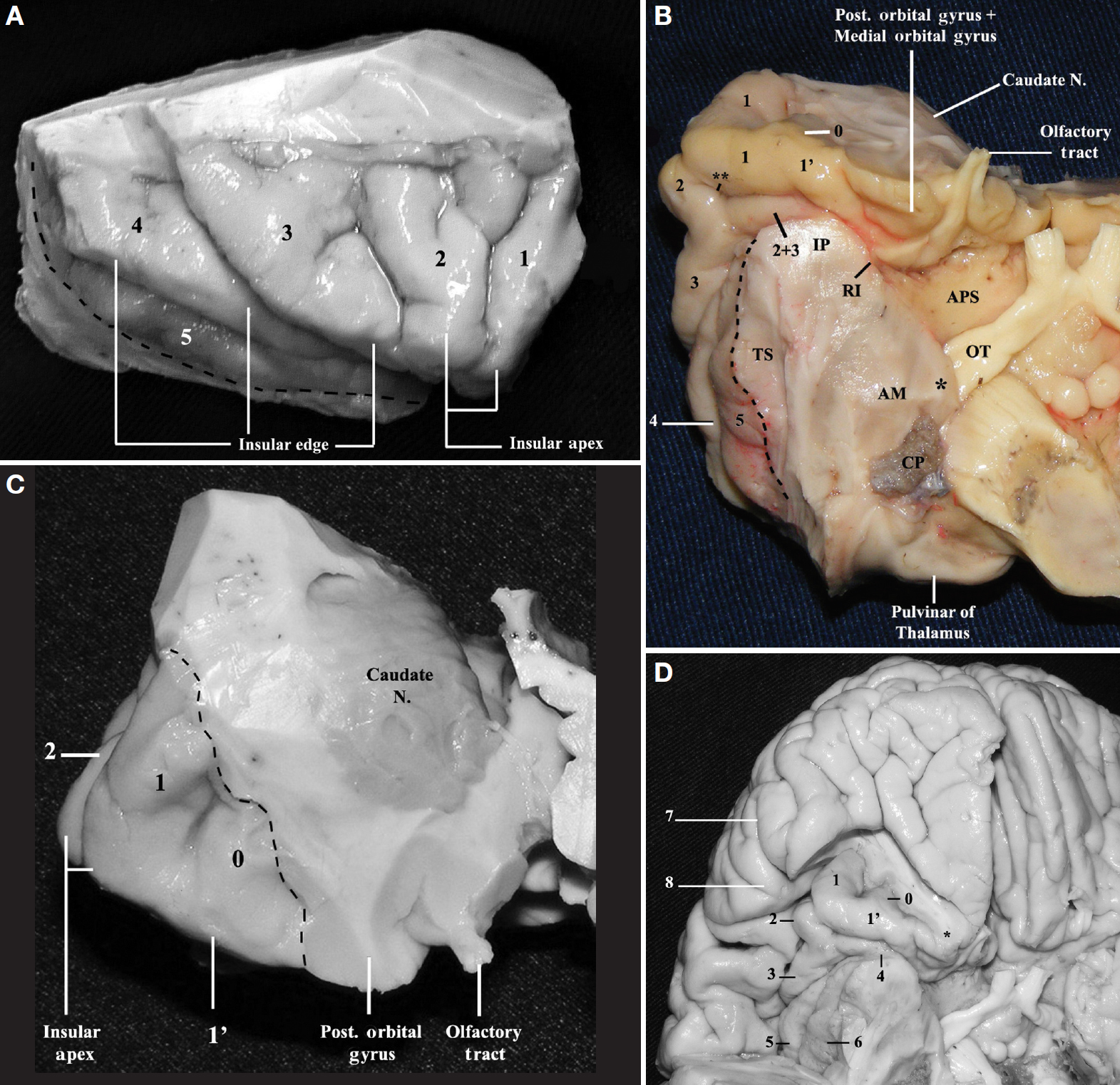 Figure 6 (A–D). A, lateral view of the right insula. In this specimen, the short insular sulcus that separates the anterior and the middle short gyri traverses the insular apex and extends to the limen insulae. 1, anterior short gyrus; 2, middle short gyrus; 3, posterior short gyrus; 4, anterior long gyrus; 5, posterior long gyrus. The central sulcus of the insula is located between the posterior short gyrus and the anterior long gyrus of the insula. The dotted line indicates the inferior limiting sulcus of the insula. B, basal view of the right insula to display the inferolateral facet. In this specimen, the short insular sulcus that runs between the anterior and middle short gyri also traverses the insular apex and extends to the limen insulae. 0, accessory gyrus; 1', transverse gyrus of Eberstaller; 1, anterior short gyrus; 2, middle short gyrus; 3, posterior short gyrus; 2 + 3, fusion of the middle and posterior short gyri; 4, anterior long gyrus; 5, posterior long gyrus; IP, insular pole; RI, rhinal incisura; APS, anterior perforated substance; TS, temporal stem; OT, optic tract; AM, amygdala; CP, insertion of the choroid plexus at the inferior choroidal point. Double asterisk, short insular sulcus. The dotted line indicates the inferior limiting sulcus of the insula. Asterisk, medial nucleus of amygdala. The medial nucleus of the amygdala is located anterior and slightly superior to the inferior choroidal point, and it is in close proximity to the optic tract and the upper part of the crus cerebri. The posteromedial orbital lobule is composed of the medial portion of the posterior orbital gyrus and by the posterior portion of the medial orbital gyrus. C, frontal view of the right insula. 0, accessory gyrus; 1', transverse gyrus of Eberstaller; 1, anterior short gyrus; 2, middle short gyrus; Caudate N, head of the caudate nucleus. The dotted line indicates the anterior limiting sulcus of the insula. The insular edge and the superolateral and inferolateral facet