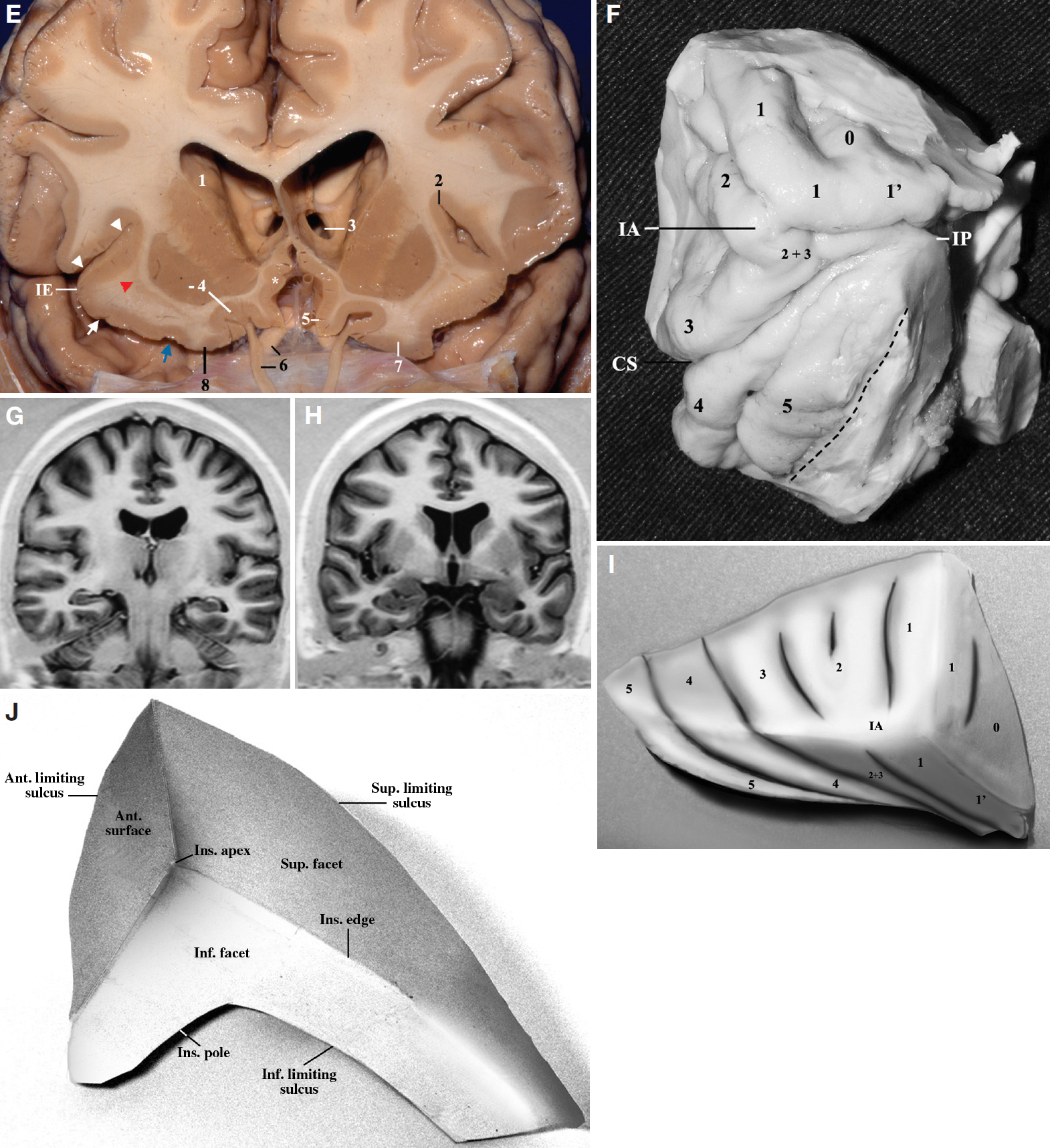 Figure 6 (E–J). E, frontal view. A coronal cut has been made at the anterior portion of the insula at the level of the optic nerves. In the anterior portion of the insula, the superolateral and the inferolateral facets, as well as the insular edge, are more evident. In the right hemisphere, the coronal cut includes the extension of the anterior short gyrus in the inferolateral facet, the transverse gyrus of Eberstaller, and its junction with the posteromedial orbital lobule (blue arrow). In the left hemisphere, a coronal cut has been made more anteriorly and included the posterior orbital gyrus. At this level, the head of the caudate is located immediately above the gray matter overlying the olfactory sulcus and is separated from the latter by a thin layer of white matter. The lentiform nucleus is located above the posteromedial orbital lobule and above the transverse gyrus of Eberstaller and is separated from the latter by a layer of white matter interposed by the claustrum. 1, head of the caudate nucleus; 2, superior limiting sulcus; 3, foramen of Monro (left); 4, lentiform nucleus and olfactory sulcus; 5, rectus gyrus; 6, optic nerve and olfactory tract; 7, posterior orbital gyrus; 8, posteromedial orbital lobule. The arrowheads indicate superior insular cleft and superolateral facet of insula. The white arrow indicates transverse gyrus of Eberstaller. The blue arrow indicates junction between the transverse gyrus and the posteromedial orbital lobule. IE, insular edge. Asterisk, paraolfactory gyrus. The red arrowhead indicates claustrum. The head and body of the caudate nucleus are located more superiorly than the superior limiting sulcus of the insula. G, coronal MRI scan of the posterior portion of the insula. H, coronal MRI scan of the middle portion of the insula. F, laterobasal view of the right insula. 0, accessory gyrus; 1', transverse gyrus of Eberstaller; 1, anterior short gyrus; 2, middle short gyrus; 3, posterior short gyrus; 2 + 3, junction between th