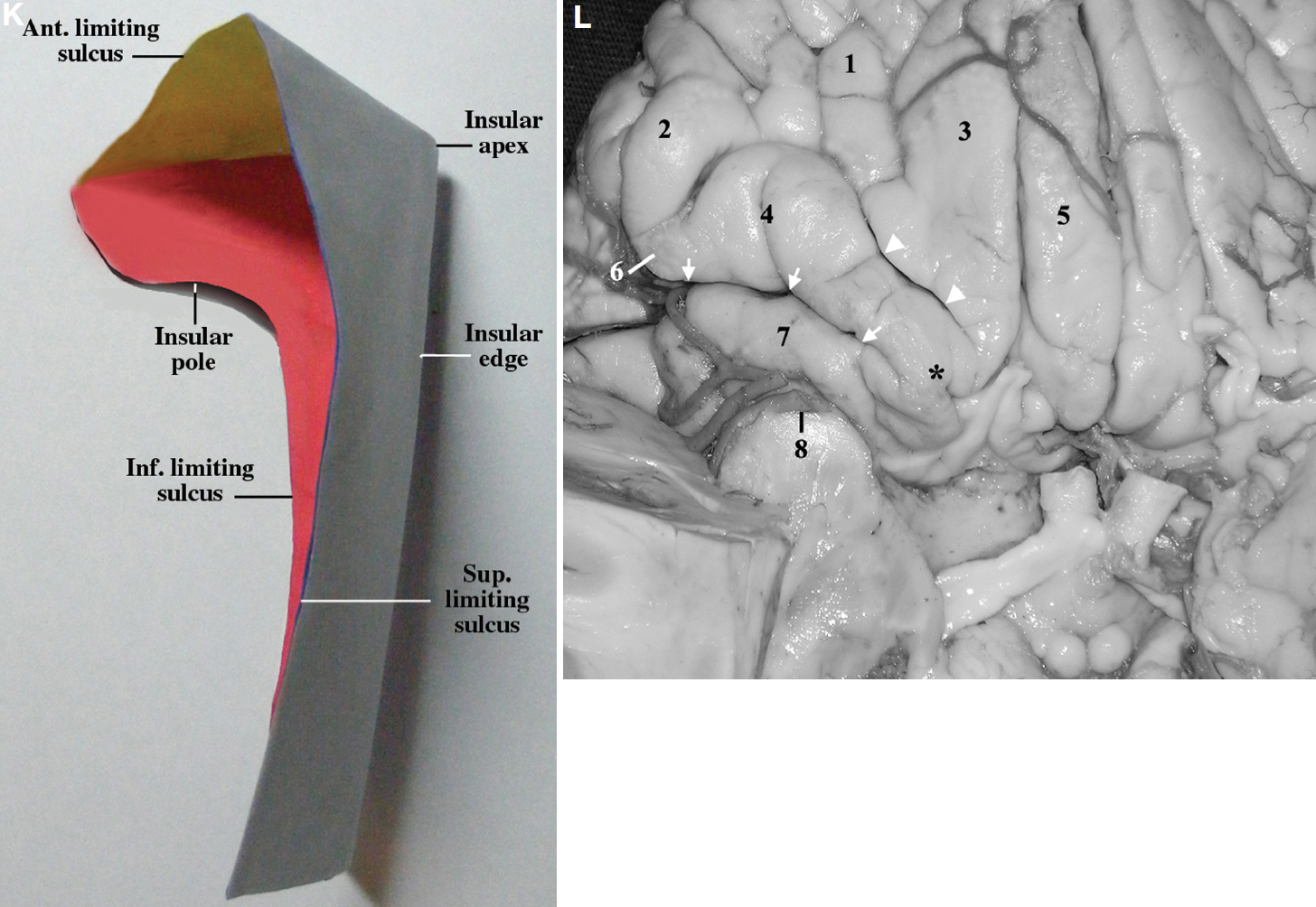 Figure 6 (K–L). K, schematic drawing depicting a posterosuperior view of the walls of the insula. The anterior wall is in yellow, the superolateral facet is in light blue, and the inferolateral facet is in red. L, basal view of the right frontal lobe. 1, anterior orbital gyrus; 2, lateral orbital gyrus; 3, medial orbital gyrus; 4, posterior orbital gyrus; 5, rectus gyrus; 6, pars orbitalis; 7, transverse gyrus; 8, insular pole. The arrows indicate anterior insular cleft. The arrowheads indicate posteromedial limb of the orbital sulcus. Asterisk, posteromedial orbital lobule, just anterior to the lateral olfactory stria and lateral to the olfactory sulcus. 1, frontal horn; 2, accessory gyrus of the insula; 3, lentiform nucleus and the internal capsule; 4, head of the caudate nucleus; 5, genu of the MCA; 6, insular pole; 7, anterior perforated substance; 8, amygdala; 9, head of the hippocampus. (Images courtesy of AL Rhoton, Jr.)