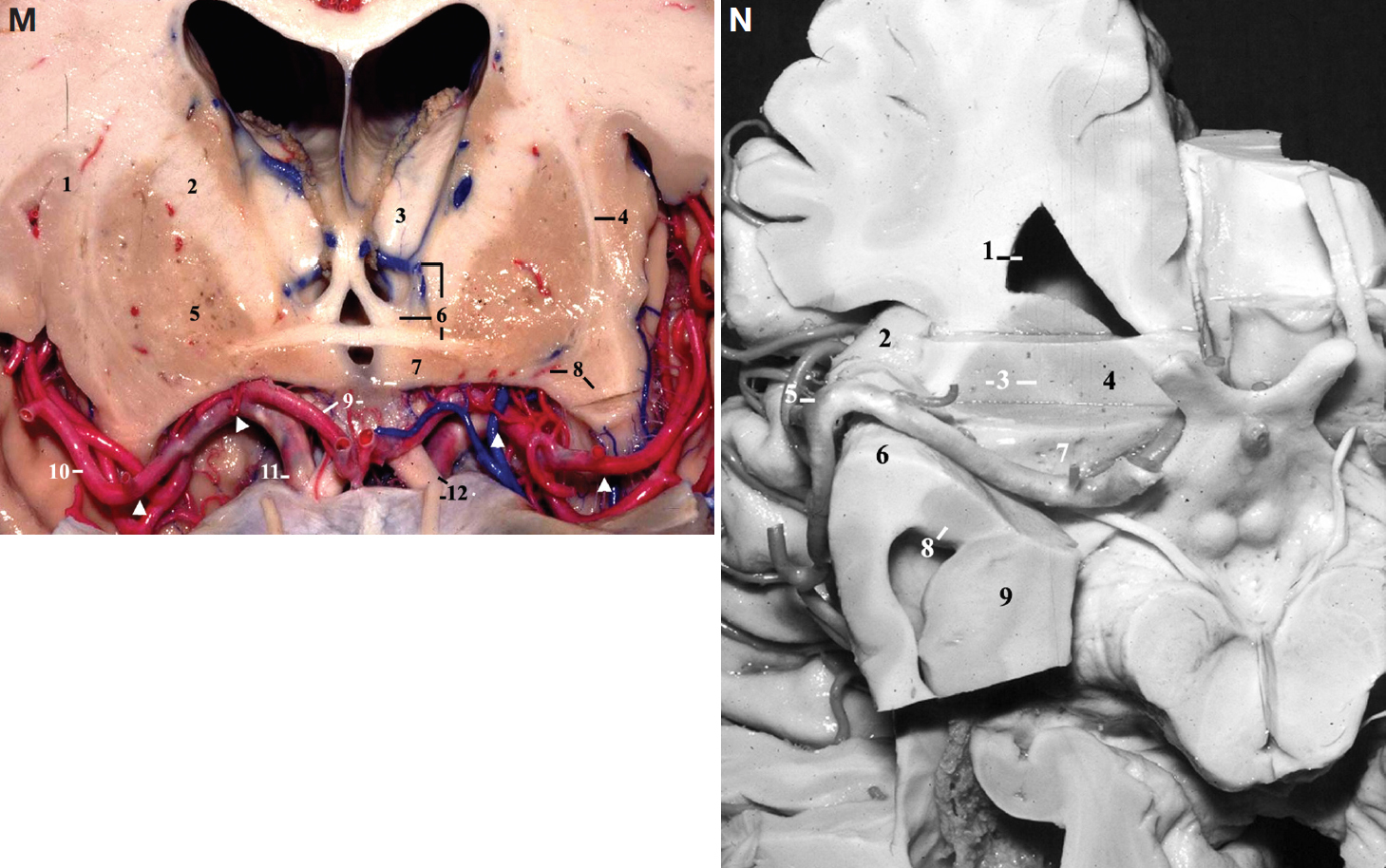 Figure 6 (M–N). M, frontal view. A coronal cut has been made at the level of the bifurcation of the internal carotid artery (anterior perforated substance). 1, insula; 2, internal capsule; 3, thalamus; 4, claustrum, external and extreme capsules; 5, lentiform nucleus; 6, thalamostriate vein, column of the fornix, and anterior commissure; 7, hypothalamus; 8, lateral lenticulostriate arteries and insular pole; 9, lamina terminalis and anterior cerebral artery (A1 segment); 10, middle cerebral artery (MCA) (M2 segment); 11, internal carotid artery (supraclinoid segment); 12, olfactory tract and optic nerve. The arrowheads indicate the extent of the M1 segment of the MCA from the carotid bifurcation to the limen insulae. N, basal view of the right hemisphere. A coronal section, followed by an axial section, has been performed at the level of the anterior perforated substance. 1, frontal horn; 2, accessory gyrus of the insula; 3, lentiform nucleus and the internal capsule; 4, head of the caudate nucleus; 5, genu of the MCA; 6, insular pole; 7, anterior perforated substance; 8, amygdala; 9, head of the hippocampus. (Images courtesy of AL Rhoton, Jr.)