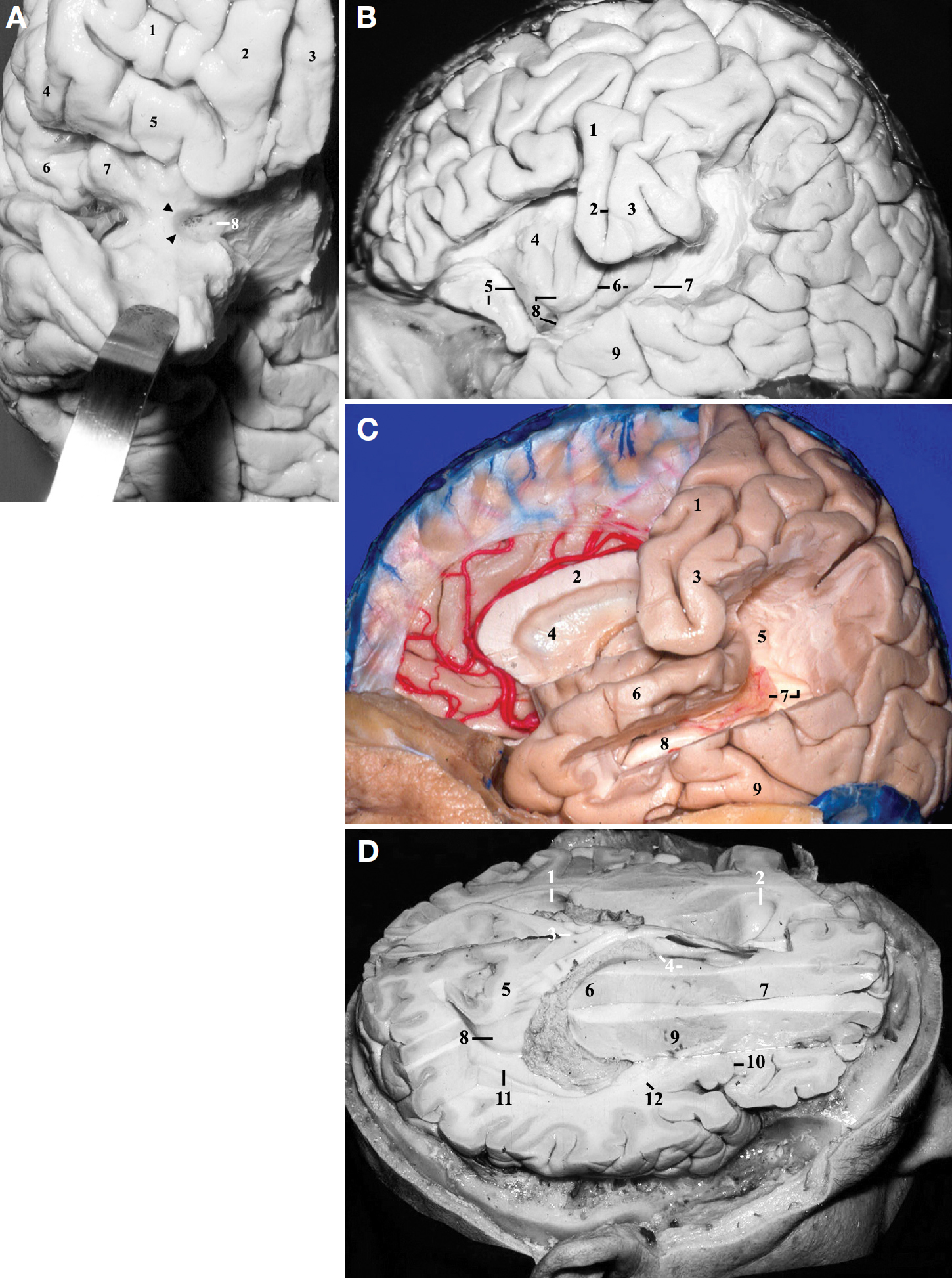 Figure 7. A, frontobasal view of the right hemisphere. The anterior part of the planum polare has been retracted inferiorly to display the anterior aspect of the insular pole. 1, anterior orbital gyrus; 2, medial orbital gyrus; 3, rectus gyrus; 4, pars triangularis; 5, posterior orbital gyrus; 6, pars opercularis; 7, anterior short gyrus of the insula; 8, anterior perforated substance. The arrowheads indicate the limen insulae. B, lateral view of the left cerebral hemisphere. The inferior frontal and supramarginal gyri have been removed to display the relationship between the insula and the opercula of the precentral and postcentral gyri. 1, precentral gyrus; 2, central sulcus; 3, postcentral gyrus; 4, anterior short gyrus of the insula; 5, posterior orbital gyrus and the anterior insular cleft; 6, central sulcus and the anterior long gyrus of the insula; 7, posterior long gyrus of the insula and the inferior limiting sulcus of the insula; 8, insular apex and insular pole; 9, middle temporal gyrus. C, lateral view of the left cerebral hemisphere. The posterior portion of the superior temporal gyrus, the upper portion of the middle temporal gyrus, and the supramarginal gyrus have been removed. 1, precentral gyrus; 2, corpus callosum; 3, postcentral gyrus; 4, septum pellucidum at the level of the frontal horn; 5, upper portion of the atrium; 6, superior temporal gyrus; 7, calcar avis and the glomus of the atrium (choroid plexus); 8, hippocampus; 9, inferior temporal gyrus. D, superolateral view of the right cerebral hemisphere. 1, left atrium; 2, left frontal horn; 3, splenium of the corpus callosum; 4, foramen of Monro and caudate nucleus; 5, bulb of the callosum; 6, thalamus; 7, anterior extremity of the anterior limb of internal capsule; 8, calcar avis; 9, lentiform nucleus; 10, anterior insular cleft; 11, collateral trigone; 12, sublenticular portion of the internal capsule. (Images courtesy of AL Rhoton, Jr.)