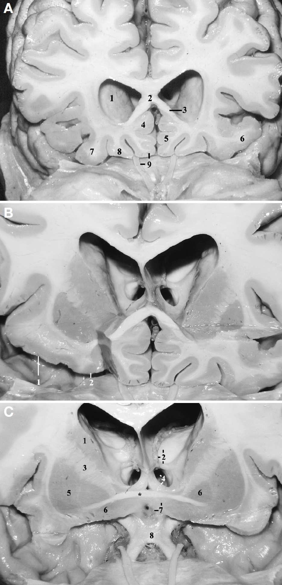 Figure 8. A, a coronal cut at the level of the planum sphenoidale, just anterior to the head of the caudate nucleus has been made. 1, head of the caudate nucleus; 2, genu of the corpus callosum; 3, rostrum of the corpus callosum; 4, inferior continuation of the cingulate gyrus; 5, inferior continuation of the medial frontal gyrus; 6, lateral orbital gyrus; 7, posterior orbital gyrus; 8, medial orbital gyrus; 9, rectus gyrus and the olfactory tract. The superior rostral sulcus is located between the 4 and 5, and the inferior rostral sulcus is located between the 5 and 9. The posteromedial limb of the orbital sulcus is located between the 7 and 8. The olfactory sulcus is located superiorly to the olfactory tract. B, a coronal cut was performed at a level between the cuts shown in Figs. 8A and 6C. 1, transverse gyrus of Eberstaller; 2, posteromedial orbital lobule. C, coronal cut performed at the level of the optic chiasm (at the anterior perforated substance). 1, caudate nucleus; 2, thalamus, choroidal fissure, and thalamostriate vein; 3, internal capsule, transition between the anterior limb and the genu; 4, foramen of Monro and column of fornix; 5, putamen; 6, globus pallidus; 7, lamina terminalis and hypothalamus; 8, optic chiasm. Asterisk, anterior commissure. (Images courtesy of AL Rhoton, Jr.)