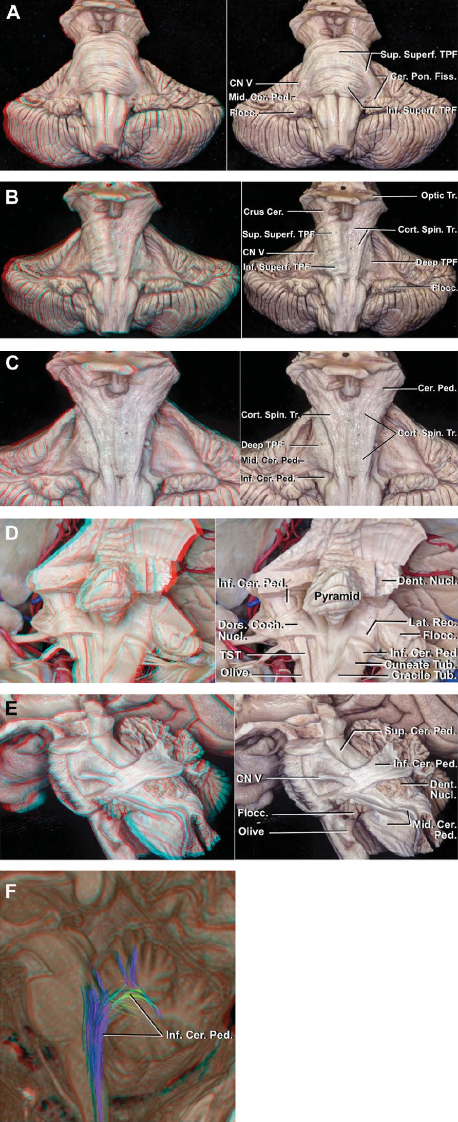 Figure 1 (A–F). Cerebellar peduncles. A, anterior view of the brainstem. A labeled 2-D illustration accompanies each 3-D illustration. The transverse pontine fibers collect near the junction of the trigeminal nerve with the anterolateral pons to form the middle cerebellar peduncle. The middle cerebellar peduncle passes dorsally and slightly caudally to enter the cerebellum at the level of the angular cleft between the cerebellum and pons called the cerebellopontine fissure. The transverse pontine fibers located anterior to the corticospinal tract, referred to as superficial transverse pontine fibers, divide into 2 parts: those situated rostral to the trigeminal nerve are the superior superficial transverse pontine fibers and those situated caudal to the trigeminal nerve are the inferior superficial transverse pontine fibers. B, the left superficial transverse pontine fibers have been removed to expose the deep transverse pontine fibers. The superficial superior and inferior transverse pontine fibers are exposed anterior to the corticospinal tract in the right half of the pons and the deep transverse pontine fibers are exposed posterior to the corticospinal tract in the left half of the pons. C, all the superficial transverse pontine fibers on both sides have been removed. The middle cerebellar peduncle is situated lateral to the inferior cerebellar peduncle. D, posterior view of the inferior cerebellar peduncle in another specimen. Part of the cerebellum and the cuneate and gracile fasciculi in the left dorsal medulla have been removed. The inferior cerebellar peduncle ascends in the dorsolateral medulla, dorsal to the olive, lateral to the gracile and cuneate tubercles, and dorsolateral to the trigeminal spinal tract. At the level of the lateral recess, the inferior cerebellar peduncle ascends deep to the stria medullaris and dorsal cochlear nucleus and turns dorsally to reach the cerebellum. It is crossed ventromedially by the intrapontine segment of the facial ne