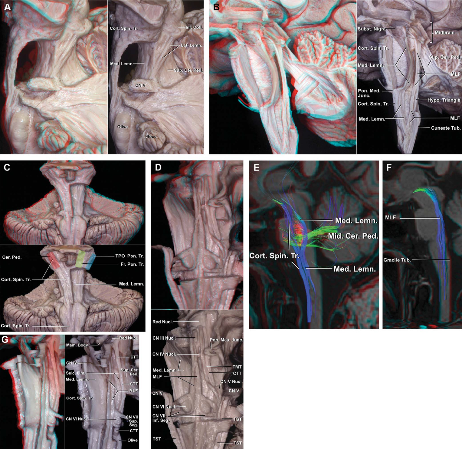 Figure 2. Fiber tracts of the brainstem. A, left lateral view. The transverse pontine fibers and some of the corticopontine tracts have been removed to expose the medial and lateral lemnisci. The lateral lemniscus is located lateral to the medial lemniscus and superior cerebellar peduncle. B, lateral view in another specimen. The medial lemniscus and medial longitudinal fasciculus have been exposed. The medial lemniscus arises in the gracile and cuneate tubercles and ascends to divide the brainstem into ventral and dorsal parts and to relay in the thalamus. In the medulla, the medial lemniscus is located just behind the pyramids formed by the corticospinal tracts that descend in the ventral medulla. The olive is located lateral to the medial lemniscus. In the pons, the medial lemniscus in the lateral view is concave ventrally. In the midbrain, it ascends dorsal to the cerebral peduncle where its fibers intermingle with the substantia nigra. The medial longitudinal fasciculus curves ventrally at the lower edge of the facial colliculus and passes ventral to the hypoglossal triangle. It crosses the medial lemniscus at the level of the gracile and cuneate tubercles and descends in the ventral funiculus of the spinal cord. C, anterior view showing the relationships of the cerebral peduncle, medial lemniscus, and corticospinal tract in the pons. The ventral fiber tracts in the left half of the pons have been removed to expose the medial lemniscus. In the midbrain, the frontopontine fibers (green) are in the medial one-third, the temporoparieto-occipitopontine fibers (blue) are in the lateral one-third, and the corticospinal and corticobulbar tracts (red) are in the middle one-third of the cerebral peduncle. D, posterior view of the medial longitudinal fasciculus and the trigeminal mesencephalic and spinal tracts. Part of the dorsal pons and midbrain have been removed to expose the left medial lemniscus. The medial longitudinal fasciculus courses adjacent the midline near 