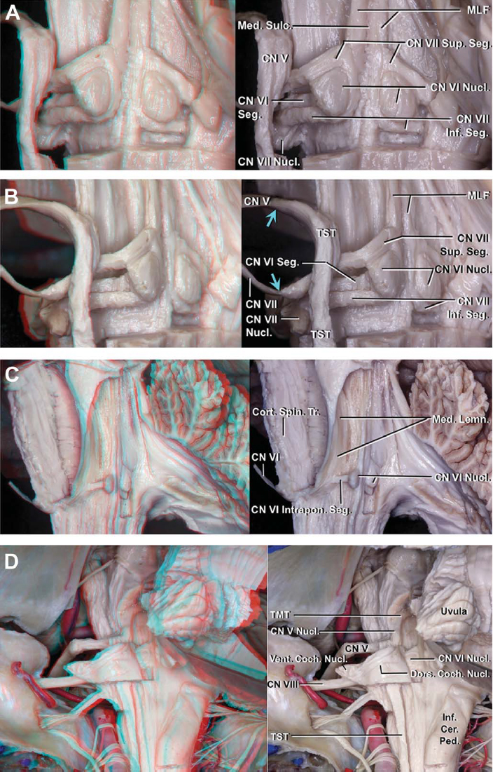 Figure 4 (A–D). Pons. A, posterior view of the facial colliculus. The ependyma of the fourth ventricle and white matter around the facial colliculus have been removed. The facial colliculus overlies the abducens nucleus and intrapontine segment of the facial nerve. The abducens nucleus is located in a paramedian position just ventral to the surface of the floor. The medial longitudinal fasciculus and intrapontine segment of the facial nerve course between the median sulcus and abducens nucleus. B, posterolateral view of the facial colliculi. The blue arrows show the point where the facial and trigeminal nerves become intrapontine. The facial nucleus is located ventrolateral to the abducens nucleus and ventromedial to the trigeminal spinal tract. The initial intrapontine segment of the facial nerve extends dorsomedially toward the floor of the fourth ventricle, curves around the lower, medial, and upper edges of the abducens nucleus, and continues ventrolaterally along the medial side of the trigeminal spinal tract to exit the pons. C, left posterolateral view of another specimen after removing the left facial nerve. The intrapontine segment of the abducens nerve originates from the ventral face of its nucleus and proceeds anteriorly through the medial lemniscus and lateral to the corticospinal tract to exit the ventral pons. D, posterior view of another specimen. The dorsal cochlear nucleus sits on the dorsal surface of the inferior cerebellar peduncle, where it forms a smooth prominence called the auditory tubercle. The ventral cochlear nucleus is located on the lateral surface of the inferior cerebellar peduncle. The intrapontine segment of the vestibulocochlear nerve passes dorsal to the trigeminal spinal tract. Amb., ambiguus; Attach., attachment; Cer., cerebellar; CN, cranial nerve; Coch., cochlear; Coe., coeruleus; Coll., colliculus; Cort., cortico; CTT, central tegmental tract; Cun., cuneate; Dors., dorsal; Fac., facial; Flocc., flocculus; Fren., frenulum; Hy
