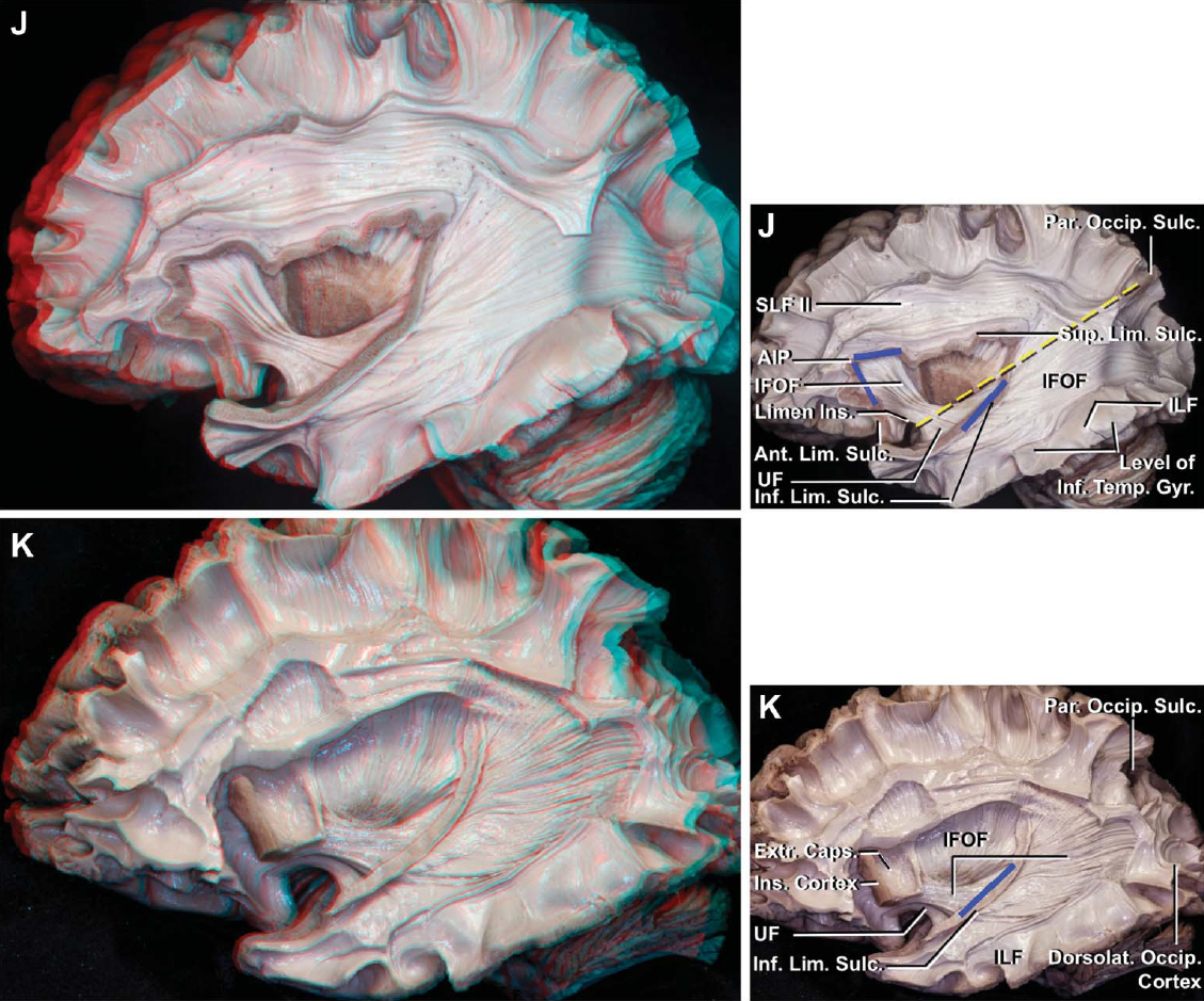 Figure 2 (J–K). J, the IFOF courses between the frontal and the parietal and occipital lobes. At the level of the middle frontal gyrus, the IFOF travels lateral to the corona radiata and medial to the SLF II, and passes deep to the anterior third of the superior limiting sulcus (blue line) and the superior half of the anterior limiting sulcus (blue line). Its fibers narrow just above the UF at the level of the limen insulae, pass deep to the middle third of the inferior limiting sulcus (blue line), and course backward within the superior and middle temporal gyri to reach the posterior part of the parietal and the occipital lobes. After passing deep to the inferior limiting sulcus, the upper limit of the cortical distribution of the IFOF at the parieto-occipital cortex is along a line (broken yellow line) connecting the midpoint of the anterior edge of the limen insulae and the upper end of the parieto-occipital sulcus. This line is also the border between the dorsal (claustrocortical fibers) and ventral (IFOF) external capsule. The UF passes deep to the inferior half of the anterior limiting sulcus and most anterior part of the inferior limiting sulcus and connects the orbitofrontal and septal areas to the temporal pole. The ILF has been exposed at the level of the inferior temporal gyrus. K, another specimen. The separation of the IFOF and UF is shown. The IFOF and UF are positioned deeper than the extreme capsule in the central core area. The IFOF passes deep to the middle third of the inferior limiting sulcus (blue line) to reach the occipital lobe while the UF courses deep to the most anterior part of the inferior limiting sulcus to reach the temporal pole. The ILF passes deep to the inferior temporal gyrus and dorsolateral occipital cortex. Acc., accumbens; AIP, anterior insular point; Amyg., amygdala; Ant., anterior; Call., callosal, callosum.; Caps., capsule; Caud., caudate; Cent., central, centrum; Claust., claustrum; Claustrocort., claustrocortical; CN, cranial nerve; Comm., commissure; Cor., corona; Corp., corpus; Dia., diagonal; Dors., dorsal; Dorsolat., dorsolateral; Ext., extension, external; Extr., extreme; FLP, frontal limen point; For., foramen; Front., frontal; Gl., gland; Glob., globus; Gyr., gyrus; Hippo., hippocampus; Hypoth., hypothalamus; IFOF, inferior fronto-occipital fasciculus; ILF, inferior longitudinal fasciculus; Inf., inferior; Innom., innominata; Ins., insula, insular; Int., internal; Lat., lateral; Lent., lenticular; LGB, lateral geniculate body; Lim., limiting; Mam., mammillary, mammillo; Med., medial, medullaris; MLF, medial longitudinal fasciculus; Nucl., nucleus; Occip., occipital; Orb. Front., orbitofrontal; Pall., pallidus; Par., parietal, parieto; PIP, posterior insular point; Post., posterior; Rad., radiata, radiations; Sag., sagittal; Sept., septal; SLF, superior longitudinal fasciculus; Str., stria; Strat., stratum; Subst., substantia; Subthal., subthalamic; Sulc., sulcus; Sup., superior; Temp., temporal; Thal., thalami, thalamic; TLP, temporal limen point; Tr., tract; UF, uncinate fasciculus; Vent., ventral, ventricle; Ventromed., ventromedial. (Images courtesy of AL Rhoton, Jr.)