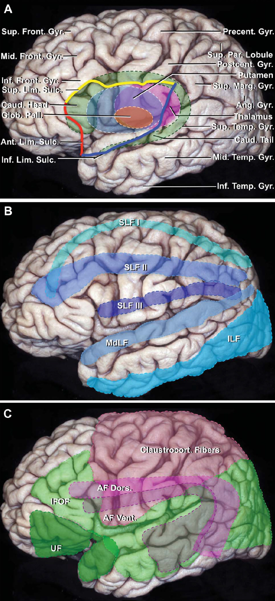 Figure 5 (A–C). A, the structures in the central core of the cerebrum have been superimposed on the cortical surface. The anterior (red), superior (yellow), and inferior (blue) limiting sulci outline the lateral surface of the central core formed by the insula. The anterior limiting sulcus is located deep to the anterior edge of the pars triangularis. The anterior part of the superior limiting sulcus is located medial to the inferior frontal gyrus, and the posterior part of the sulcus is located medial to the junction of the lower and middle third of the pre- and postcentral gyri and anterior part of the supramarginal gyrus. The inferior limiting sulcus is located deep to the superior temporal sulcus. The anterior part of the head of the caudate extends to the anterior limiting sulcus. The upper edge of the body extends slightly above the level of the superior limiting sulcus, and a segment of the tail extends backward and inferior to the level of the inferior limiting sulcus. The tail of the caudate nucleus, as it proceeds anteriorly, passes above the anterior part of the inferior limiting sulcus to blend into the amygdala. Other structures in the central core include the putamen, globus pallidus, and thalamus. B, long association pathways. The SLF I extends deep to the superior frontal gyrus and the superior parietal lobule. The SLF II passes deep to the middle frontal gyrus and midlevel of the pre- and postcentral gyri and deep to the upper part of the supramarginal and angular gyri. The SLF III passes deep to the inferior frontal gyrus, the lower part of the pre- and postcentral gyri, and the lower part of the supramarginal gyrus. The MdLF passes deep to or through the superior temporal and angular gyri and the ILF medial to the inferior temporal gyrus and dorsolateral occipital cortex. C, position of the UF, IFOF, claustrocortical fibers, and the dorsal and ventral segments of the AF in relation to the cortical surface. The UF passes medial to the temporal pole, anterior part of the superior and middle temporal gyri, and limen insulae and connects to the medial and lateral orbitofrontal areas. The IFOF passes deep to the mid part of the middle frontal gyrus and anterior part (pars orbitalis and triangularis) of the inferior frontal gyrus. In the insular area, the IFOF passes deep to the short insular gyri and limen insulae, and deep to the superior and middle temporal gyri, posterior part of the inferior parietal lobe, and occipital lobe. The claustrocortical fibers pass deep to the part of the cerebral cortex between the supplementary motor area anteriorly and posterior parietal lobe posteriorly. The claustrocortical fibers form the dorsal external capsule, and the IFOF and UF form the ventral external capsule. The AF ventral segment is positioned ventral to the AF dorsal segment in the area above the sylvian fissure, but anterior and dorsal to the dorsal segment below the fissure. The AF ventral segment passes deep to the mid part of the superior and middle temporal gyri, posterior part of the superior temporal gyrus, lower part of the supramarginal gyrus, and post- and precentral and inferior frontal gyri. The AF dorsal segment passes deep to the posterior part of the middle and inferior temporal gyri, lower part of the angular gyrus, post- and precentral gyri, and posterior part of the middle and inferior frontal gyri. AF, arcuate fasciculus; Ang., angular; Ant., anterior; Call., callosum; Caud., caudate; Claustrocort., claustrocortical; Comm., commissure; Corp., corpus; Dors., dorsal; Front., frontal; Glob., globus; Gyr., gyrus; IFOF, inferior fronto-occipital fasciculus; ILF, inferior longitudinal fasciculus; Inf., inferior; LGB, lateral geniculate body; Lim., limiting; Marg., marginal; MdLF, middle longitudinal fasciculus; Mid., middle; Pall., pallidus; Par., parietal; Postcent., postcentral; Precent., precentral; Rad., radiations; SLF, superior longitudinal fasciculus; Sulc., sulcus; Sup., superior; Temp., temporal; Thal., thalamic; UF, uncinate fasciculus; Vent., ventral. (Images courtesy of AL Rhoton, Jr.)