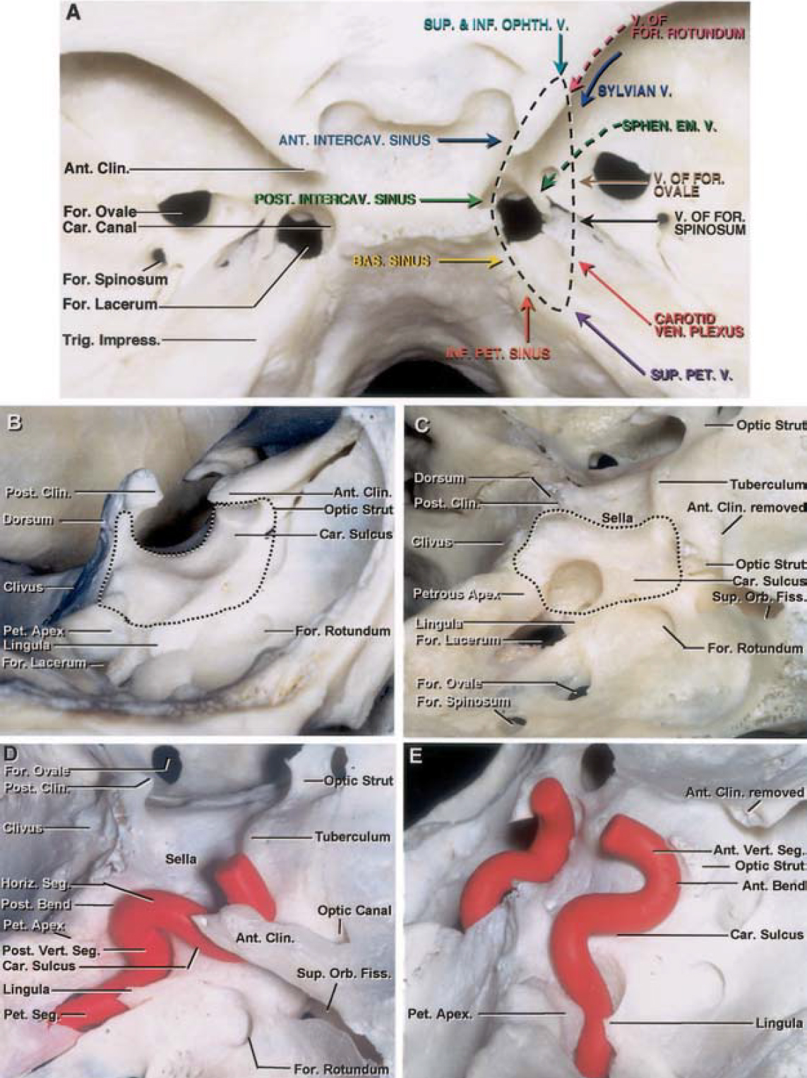 Figure 1 (A  –E  ).  Photographs illustrating the osseous relation-ships of the cavernous sinus. A, superior view of the cranial base in the region of the cavernous sinus showing the cavernous sinus extending from the superior orbital fissure anteriorly to the petrous apex posteriorly; it is bordered by the sella medially and the middle fossa laterally. It fills the posterior margin of the superior orbital fissure, which is located below the anterior clinoid process. Its posterior wall extends from the lateral edge of the dorsum sellae to the medial margin of the trigeminal impression and Meckel's cave. Numerous venous channels open into the cavernous sinus. These include the basilar sinus, the anterior and posterior intercavernous sinuses, the superior and inferior petrosal sinuses, the sylvian and ophthalmic veins, and the veins exiting the foramen ovale, rotundum, and spinosum, the carotid canal, and the sphenoidal emissary foramen. Each venous structure is shown by colored arrows. The basilar sinus is the largest communicating channel between the cavernous sinuses. B, lateral view showing the cavernous sinus resting on the body of the sphenoid bone and adjacent petrous apex (broken lines). The lower edge of the posterior limit of the cavernous sinus sits on the junction of the petrous apex and the body of the sphenoid bone at the upper end of the petroclival fissure. The lower edge extends for-ward along the superior edge of the lingula of the sphenoid bone and the lateral part of the sphenoid body to just above the foramen rotundum. The anterior edge extends along the posterior edge of the optic strut and the medial edge of the superior orbital fissure. The upper limit of the sphenoid bone extends along the superior margin of the carotid sulcus and ends posteriorly at the posterior clinoid process. The dorsum sellae is located between the paired posterior clinoid processes. C, view showing the anterior clinoid process removed. The osseous limits of the cavernous sinus have been outlined. The tuberculum sellae is located at the posterior edge of the chiasmatic sulcus between the anterior part of the paired carotid sulci and posteromedial to the optic canals. The lingula of the sphenoid bone projects posteriorly above the intracranial end of the carotid canal and foramen lacerum and covers the terminal part of the petrous segment of the internal carotid artery. The petrolingual ligament extends from the lingula to the petrous apex. D, superolateral view of the region of the cavernous sinus showing the segments of the internal carotid artery. The intracavernous carotid artery has five parts: the posterior vertical segment, posterior bend, horizontal segment, anterior bend, and anterior vertical segment. The anterior bend and anterior vertical segments course medial to the anterior clinoid process. E, view showing the anterior clinoid process moved to expose the anterior bend and anterior vertical segment of the intracavernous carotid. A., artery; Ant., anterior; Bas., basilar; Car., carotid; Clin., clinoid; Em., emissary; Fiss., fissure; For., foramen; Horiz., horizontal; Impress., impression; Inf., inferior; Intercav., intercavernous; Mid., middle; Ophth., ophthalmic; Orb., orbital; Pet., petrosal, petrous; Pit., pituitary; Post., posterior; Seg., segment; Sphen., sphenoid, sphenoidal; Sulc., sulcus; Sup., superior; Trig., trigeminal; V., vein; Ven., venous; Vert., vertical. (Images courtesy of AL Rhoton, Jr.)