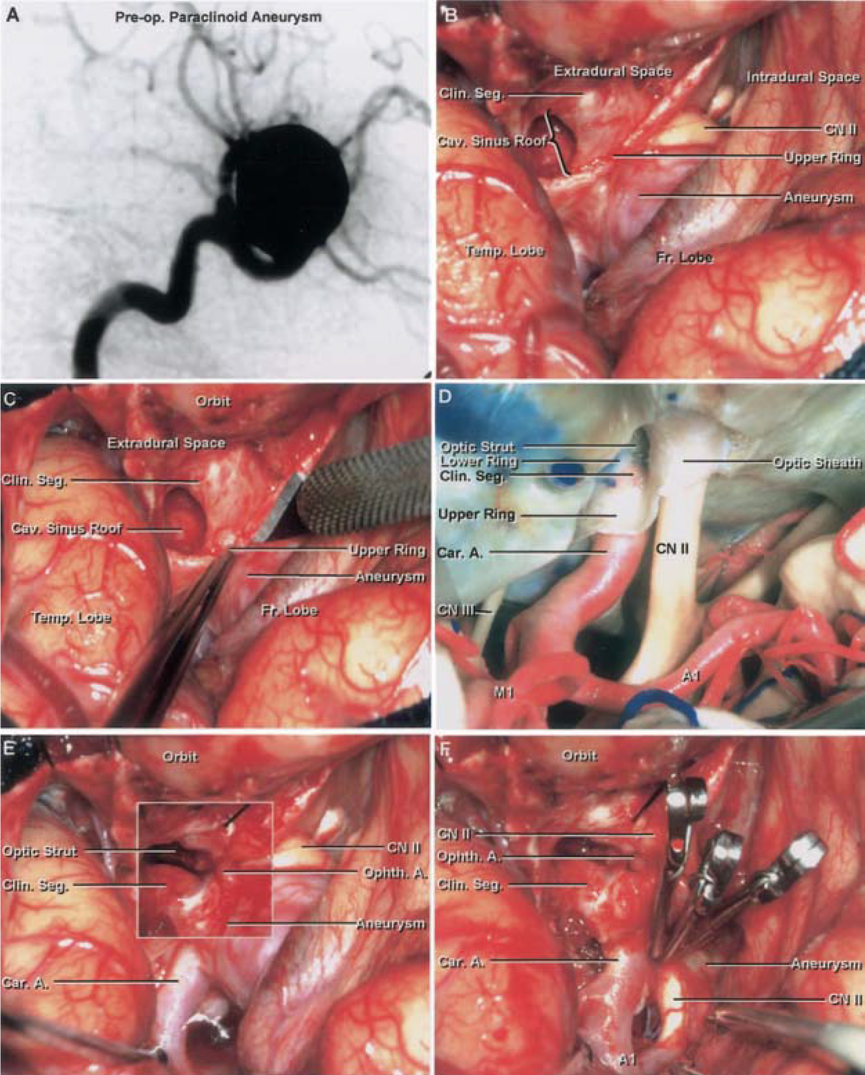 Figure 8 (A–F). A–F, photographs illustrating the transcavernous approach to an upwardly directed paraclinoid aneurysm. G–L, photographs illustrating the transcavernous approach to a downwardly directed paraclinoid aneurysm. A, oblique preoperative angiogram showing a large upwardly directed paraclinoid aneurysm on the left internal carotid artery. B, view of completed left orbitozygomatic craniotomy and pretemporal approach showing the sylvian fissure opened, the anterior clinoid removed, and the anterior portion of the roof of the cavernous sinus exposed. The extradural and intradural spaces are exposed. The large upwardly directed paraclinoid aneurysm elevates the optic nerve and adjacent part of the frontal lobe. C, view showing the upper ring and the optic sheath opened to aid in exposure of the aneurysm neck. D, anatomic dissection showing the structures exposed. E, central insert showing the next stage of dissection of the aneurysm neck has been overlaid on the corresponding area on B. The upper ring and the optic sheath have been opened, and the aneurysm and the ophthalmic artery have been exposed. F, view showing the aneurysm neck isolated and clipped using three straight clips. A., artery; A1, A1 segment of the anterior cerebral artery; Car., carotid; Cav., cavernous; CN, cranial nerve; Clin., clinoidal; Fr., frontal; M1, M1 segment of the middle cerebral artery; Op., operative; Ophth., ophthalmic; Seg., segment; Sphen., sphenoid; Temp., temporal. (Images courtesy of AL Rhoton, Jr.)