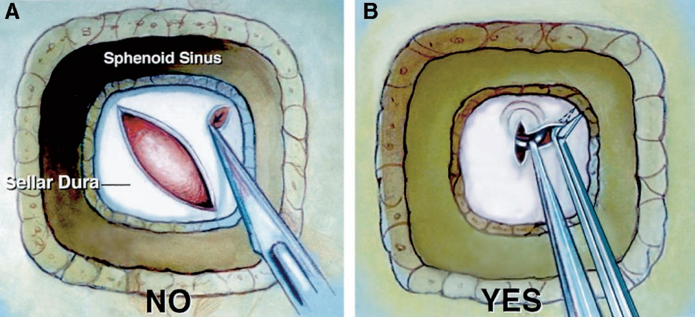 Figure 10. Diagram illustrating the dural opening after a transsphenoidal approach to the sella. A, the use of a knife for opening the dura in corners of the anterior sellar exposure should be avoided because the intracavernous carotids can indent the lateral aspect of the gland or a tumor and may be damaged by the knife during the lateral part of the dural opening. B, the senior author (ALR) opens the dura beginning with a short vertical incision in the midline. A small, blunt, right-angle ring curette introduced through the small vertical dural opening separates the dura from the gland and tumor. After the dura is freed, a pair of 45-degree-angle scissors is selected to open the dura in an x-shaped cut from corner to corner. The dura should be elevated away from the gland with the blade of the scissors that is inserted inside the dura, so that the blade can be observed through the dura to ensure no other structure is cut. (Images courtesy of AL Rhoton, Jr.)