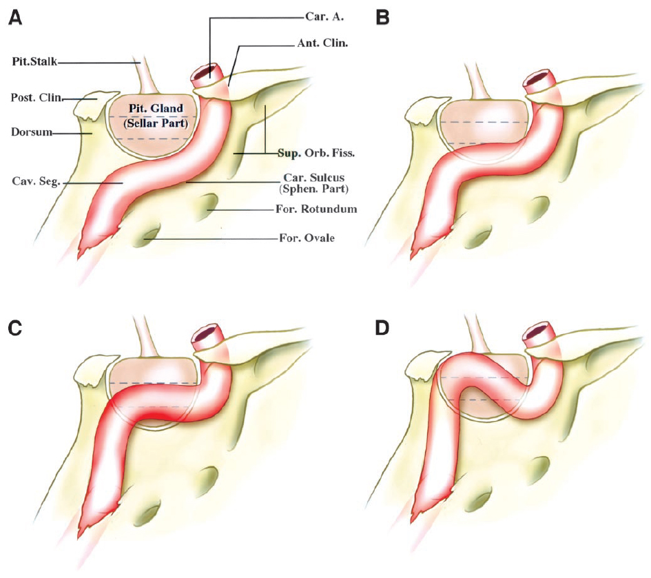Figure 9. Diagrams of lateral views of the right CS showing the different relationships between the intracavernous carotid and the sellar part of the medial wall. A, the intracavernous carotid courses on the carotid sulcus without any contact with the sellar part of the medial wall. B, the intracavernous carotid courses lateral to the inferior third of the gland and the medial wall. C, the intracavernous carotid courses lateral to some part of the middle and lower thirds of the gland and the medial wall. D, the intracavernous carotid courses lateral to all thirds of the gland and the medial wall. A., artery; Ant., anterior; Car., carotid; Cav., cavernous; Clin., clinoid; Fiss., fissure; For., foramen; Orb., orbital; Pit., pituitary; Post., posterior; Seg., segment; Sphen., sphenoidal; Sup., superior. (Images courtesy of AL Rhoton, Jr.)