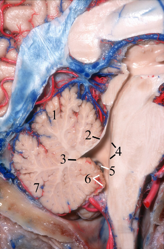Figure 1. The IV ventricle in a sagittal view resembles a tent with its apex, the fastigium, pointing posteriorly. 1 Tentorial surface of the cerebellum. 2 Superior roof of the IV ventricle, superior medullary velum. 3 Fastigium. 4 Floor of the IV ventricle: pons and medulla. 5 Lateral recess. 6 Inferior roof of the IV ventricle, tela choroidea. 7 Suboccipital surface of the cerebellum. (Image courtesy of AL Rhoton, Jr.)