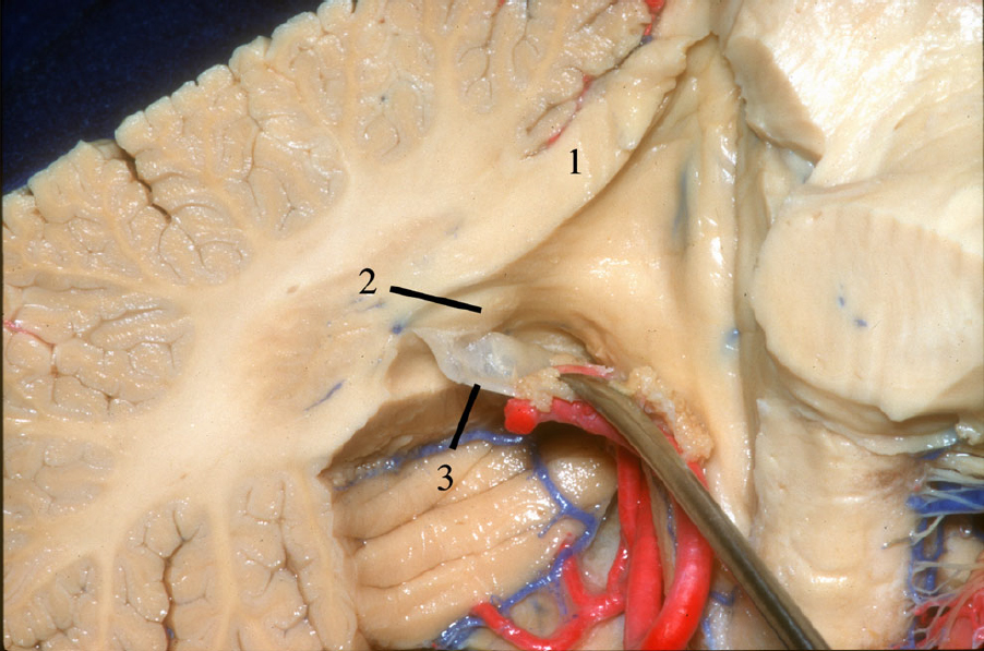 Figure 10.  Sagittal cut at the level of the dentate nucleus. 1 Superior cerebellar peduncle. 2 Dentate tubercle. 3 Inferior medullary velum. (Image courtesy of AL Rhoton, Jr.)