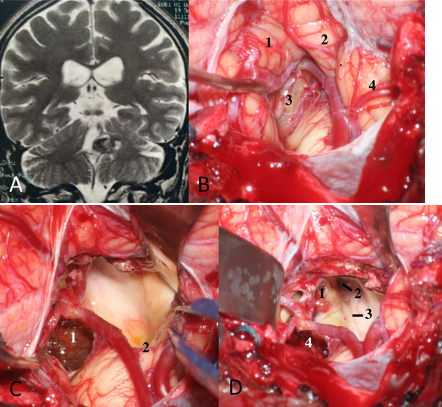 Figure 19.  Removal of the tonsil. a T2 coronal MRI showing a cavernoma at the confluence of the cerebellar peduncles. b The left tonsil is being retracted to show the tela choroidea at the level of the left lateral recess: 1 left tonsil, 2 uvula, 3 tela choroidea at the level of the lateral recess, and 4 right tonsil. c Final view after resection of the cavernoma: 1 Resection of the cavernoma, and 2 obex. d The left tonsil was removed to better expose the area of the confluence of the cerebellar peduncles: 1 superior cerebellar peduncle, 2 cerebral aqueduct, 3 median sulcus, and 4 resection of the cavernoma. (Images courtesy of AL Rhoton, Jr.)