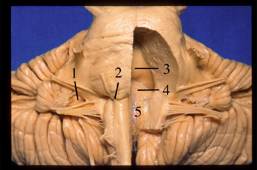 Figure 2.  Anterior view of the roof of the IV ventricle after removing the pons and the medulla. 1 Foramen of Luschka. 2 Pontomedullary sulcus. 3 Superior medullary velum. 4 Nodule. 5 Tela choroidea. (Image courtesy of AL Rhoton, Jr.)