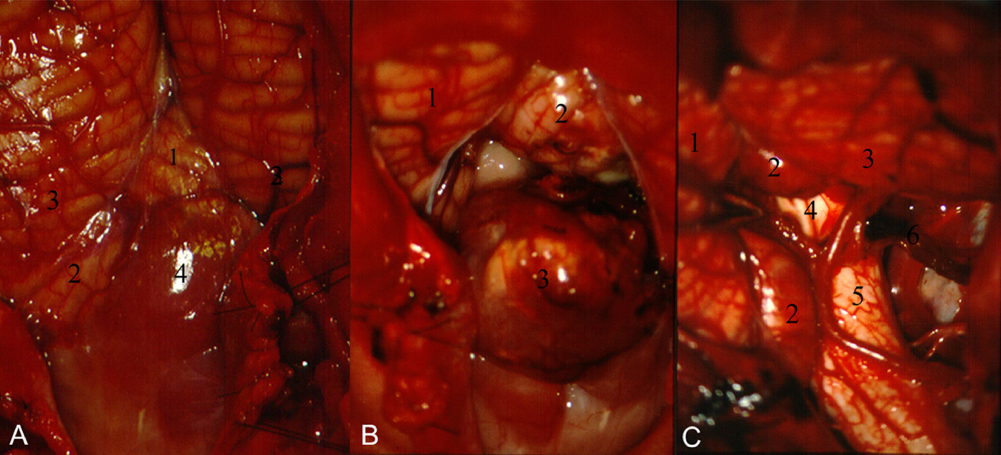 Figure 21.   Infratentorial ependymoma . a. 1 vermis, 2 left tonsil, 3 biventral lobules, and 4 tumor filling the cisterna magna. b 1 vermis, 2 right tonsil, and 3 tumor dissected from the right tonsil. c Complete removal of the ependymoma, from the right cerebellomedullary fissure. 1. Vermis. 2. Tonsils. 3 Right biventral lobule. 4 IV Ventricle. 5 Medulla. 6. Cerebellomedullary fissure. (Images courtesy of AL Rhoton, Jr.)