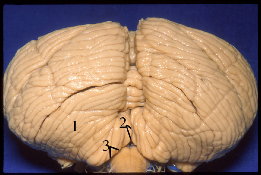 Figure 4.  Suboccipital surface of the cerebellum. 1 Biventral lobule 2 Tonsil and vallecula. 3 Cerebellomedullary fissure. (Image courtesy of AL Rhoton, Jr.)