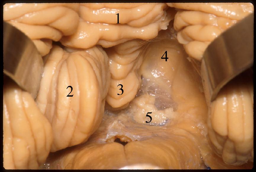Figure 5.  The tonsil on the right side was removed. 1 Pyramid. 2 Tonsil. 3 Uvula. 4 Inferior medullary velum. 5 Tela choroidea. (Image courtesy of AL Rhoton, Jr.)