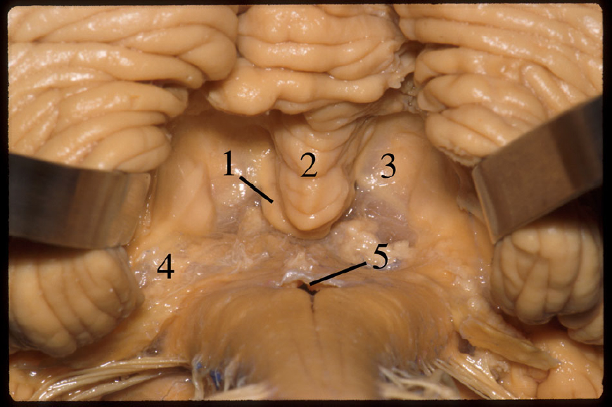 Figure 6.  View of the inferior roof of the IV ventricle after removal of both tonsils. 1 Nodule. 2 Uvula. 3 Inferior medullary velum. 4 Tela choroidea at the level of the lateral recess. 5 Foramen of Magendie. (Image courtesy of AL Rhoton, Jr.)