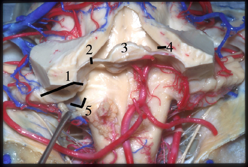 Figure 9.  Posterior view of the lateral recess. 1 Flocculus and peduncle of the flocculus. 2 Inferior medullary velum. 3 Nodule. 4 Posterolateral recess. 5 Lateral recess. (Image courtesy of AL Rhoton, Jr.)