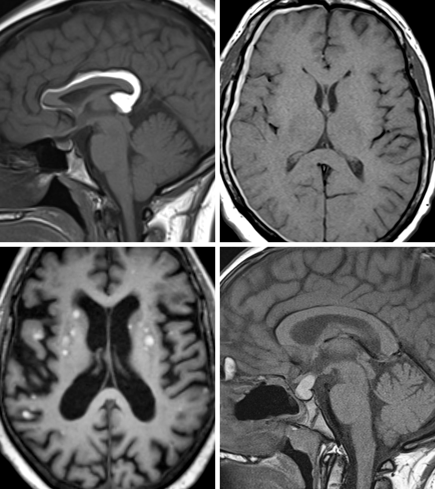 Figure 1: (Top Left) T1-weighted precontrast images demonstrate a T1 hyperintense mass (lipoma) involving the corpus callosum. (Top Right) T1-weighted precontrast images demonstrate a T1 hyperintense right-sided extra-axial collection compatible with early subacute subdural hematoma. (Bottom Left) T1-weighted precontrast images demonstrate multiple round T1 hyperintense lesions, a classic appearance for metastatic melanoma. (Bottom Right) T1-weighted precontrast image demonstrates a T1 hyperintense sellar lesion compatible with a proteinaceous Rathke cyst.