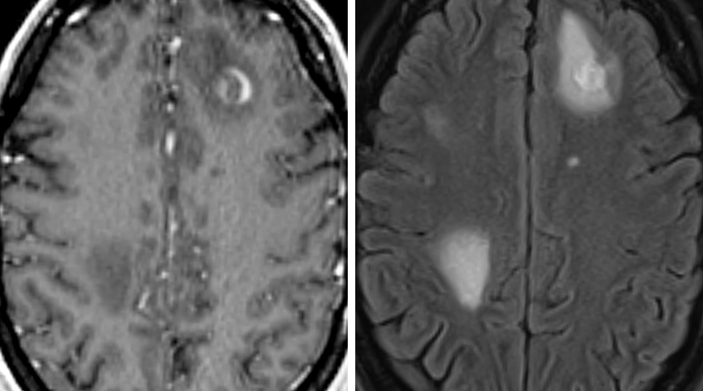 Figure 2: T1-weighted postcontrast images (left) demonstrate a rim enhancing lesion in the left frontal lobe with surrounding left frontal vasogenic edema as well as edema in the right parietal lobe seen on FLAIR images (right) in this patient with metastatic carcinoma.