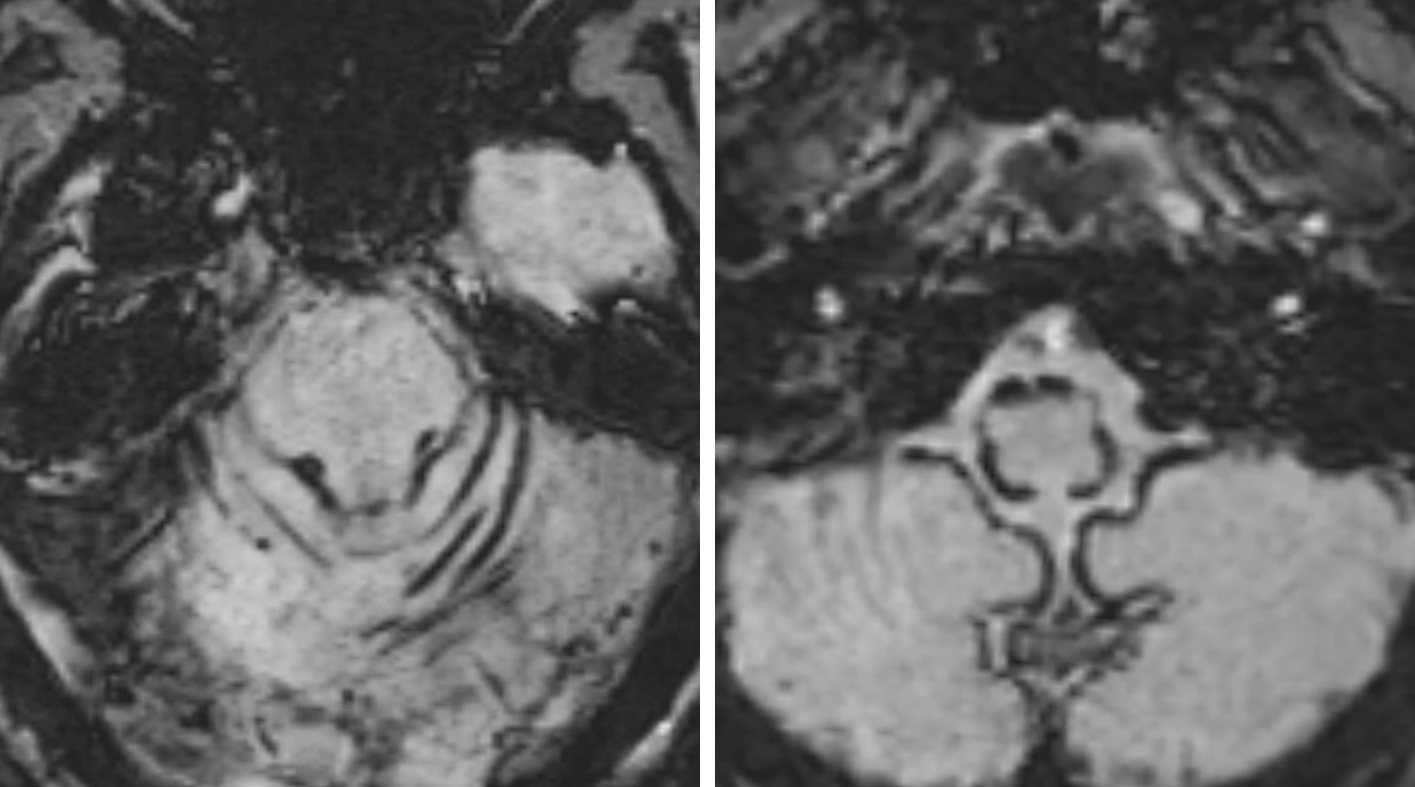 Figure 4: SWI images demonstrate superficial siderosis with hemosiderin coating the surface of the brainstem and the cerebellar hemispheres. These findings raise concern for underlying chronically hemorrhagic aneurysm.