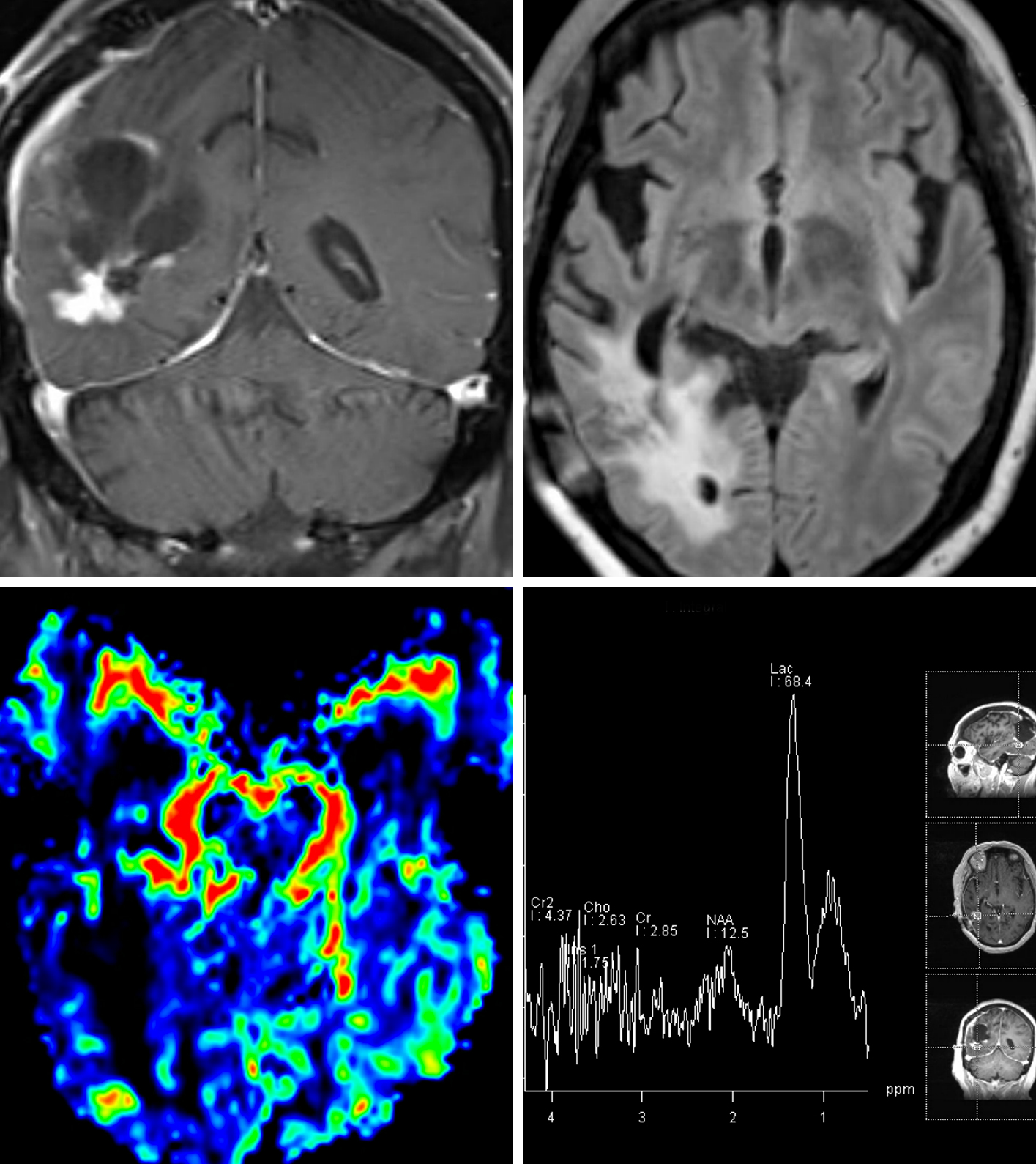 Figure 11: Coronal T1-weighted postcontrast fat-sat image (top left) demonstrates an enhancing nodule with surrounding FLAIR hyperintensity (top right) along the inferior aspect of the resection cavity in the right parietal lobe in this patient who is status post surgical resection and radiation for glioblastoma. (Bottom Left) No overt hyperperfusion is seen on rCBV perfusion images. (Bottom Right) Spectroscopy of the lesion demonstrates significant elevation of lactate with depression of other metabolites. The spectroscopic findings and lack of hyperperfusion favor radiation necrosis.