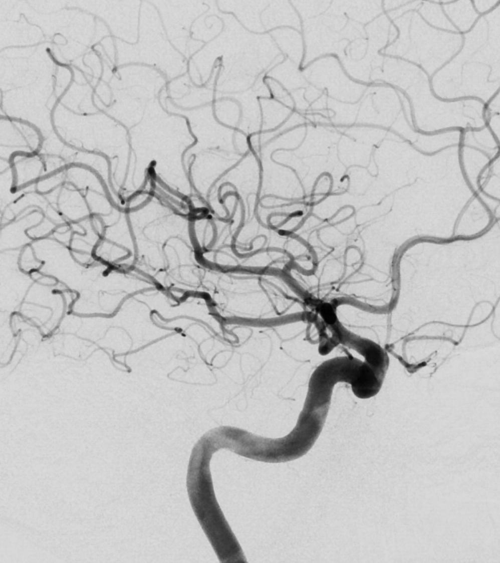 Figure 14: Normal digital subtraction catheter angiogram of the head.