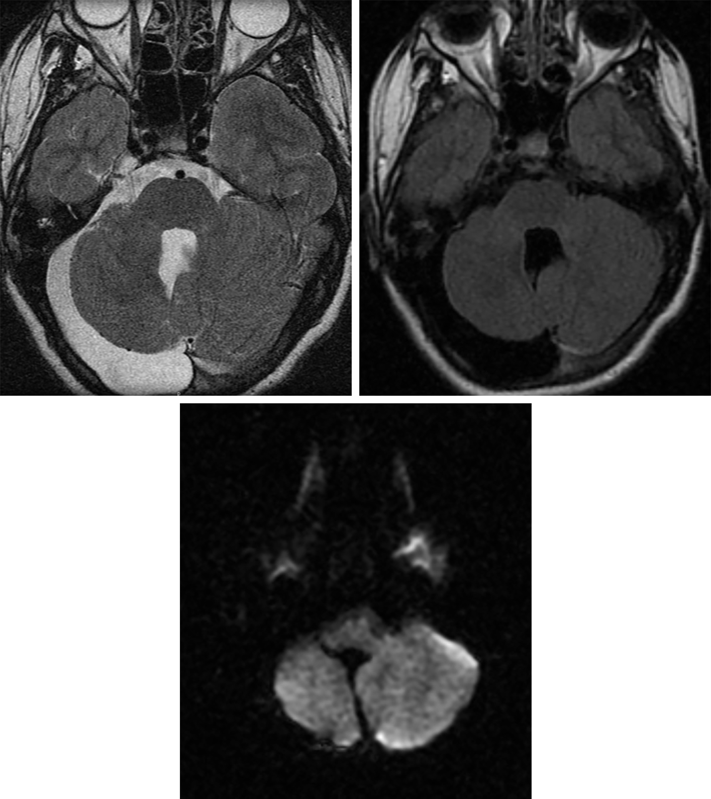 Figure 2: This arachnoid cyst posterior to the right cerebellar hemisphere demonstrates T2 hyperintensity (top left) and completely suppresses on FLAIR (top right), matching the CSF in the fourth ventricle on both of these sequences. It exhibits no DWI hyperintensity (bottom), distinguishing this arachnoid cyst from an epidermoid cyst. The mass effect on the adjacent cerebellum is somewhat substantial, but the parenchyma is without edema, suggesting a chronic or developmental abnormality. The calvarium is also thinned overlying the cyst on T2 (top left), another characteristic that implies chronicity.