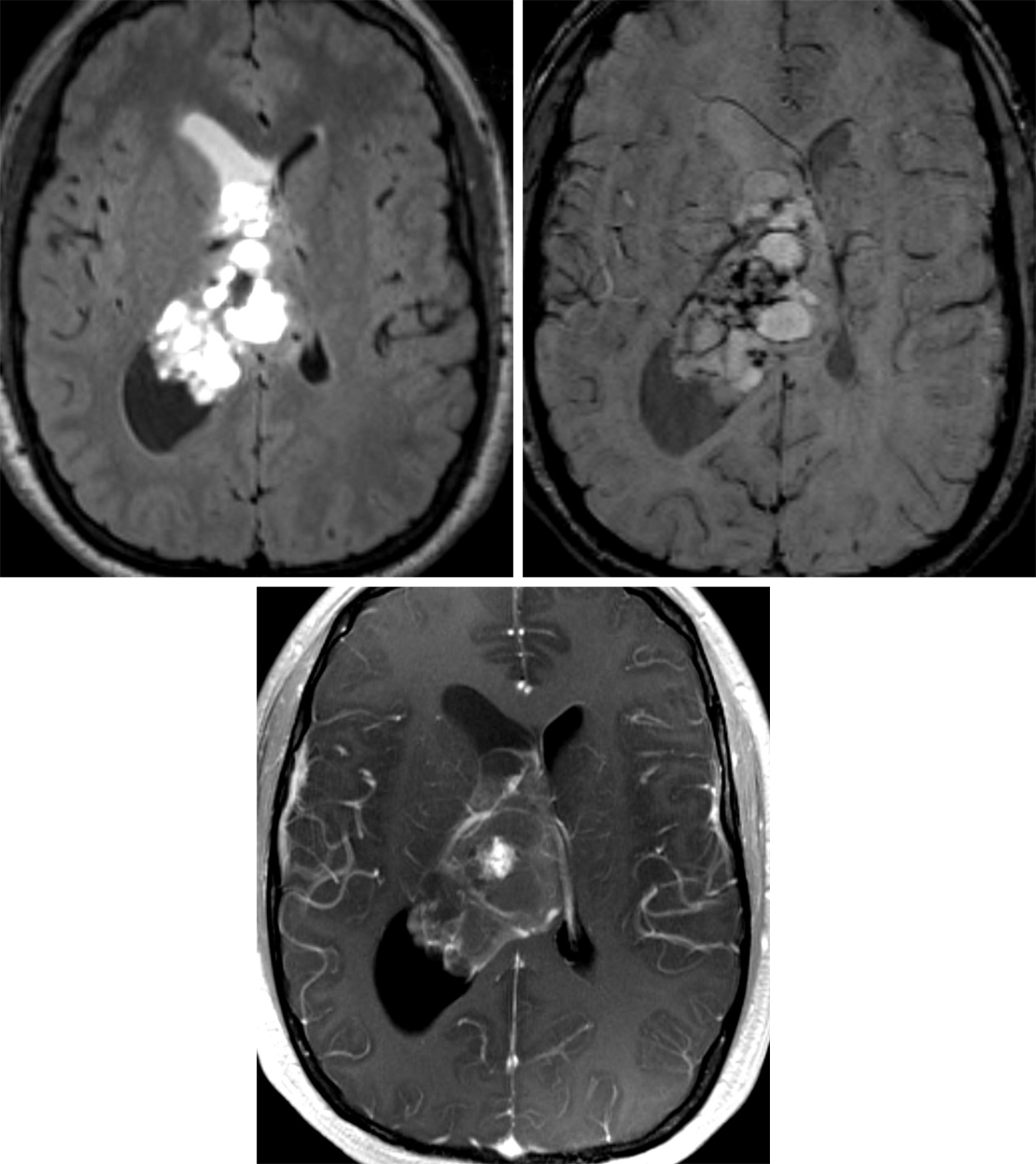 Figure 1: (Top Left) This large central neurocytoma demonstrates its typically cystic feature on axial FLAIR. This image also shows an entrapped right frontal horn indicated by incomplete suppression of cerebrospinal fluid. (Top Right) The SWI image shows dark susceptibility artifact that likely represents calcifications commonly seen in these tumors. (Bottom) Central neurocytomas typically have some enhancement but less than many other tumors, as seen on this postcontrast T1WI.