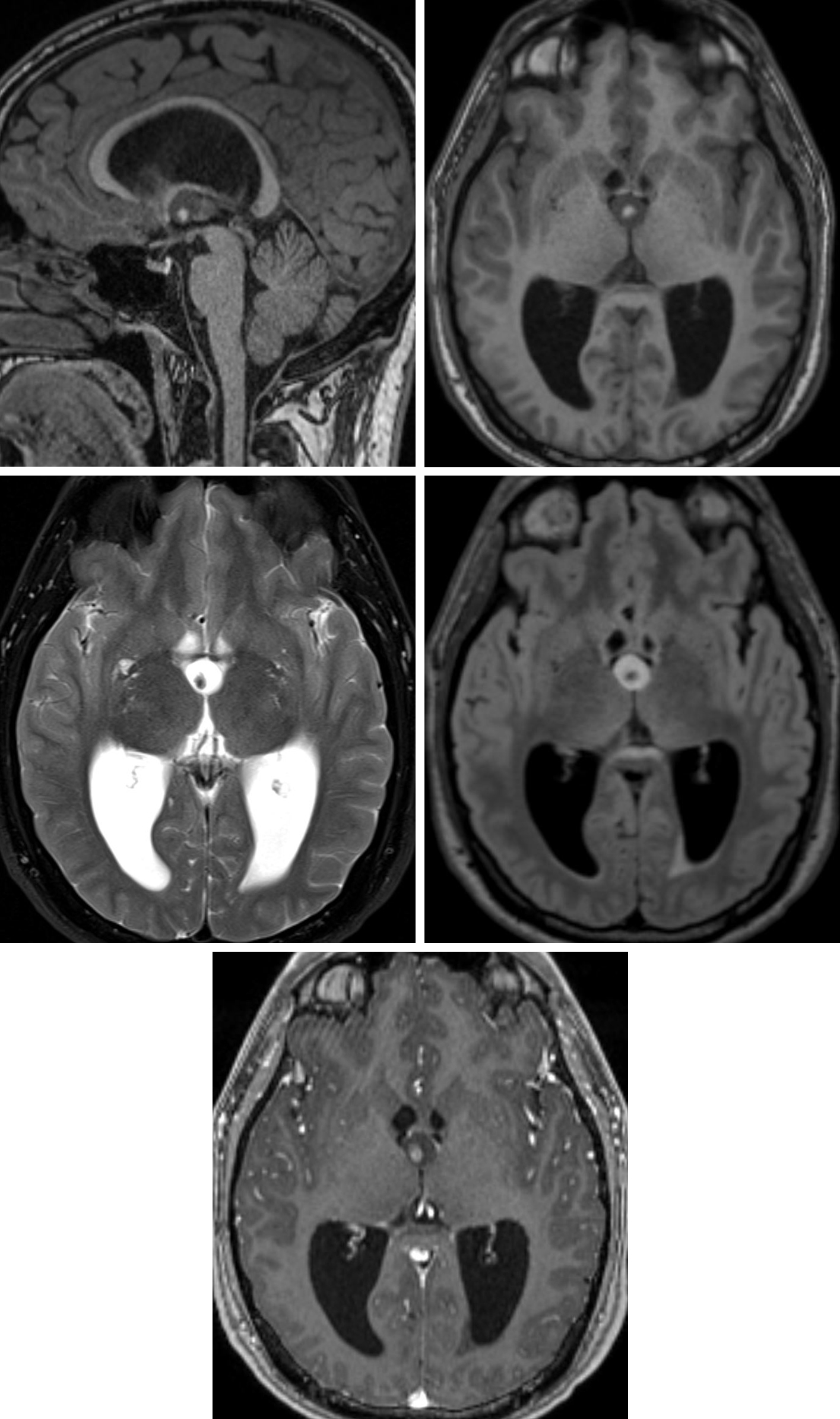"Figure 2: Sagittal (top left) and axial (top right) T1-weighted images demonstrate a low-signal-intensity colloid cyst at the foramen of Monro. The cyst has a central T1 hyperintense focus that represents inspissated proteinaceous debris. (Middle Left) The cyst is bright on T2 with low-signal-intensity proteinaceous debris that is sometimes referred to as the ""black hole"" effect. (Middle Right) The cyst remains predominantly hyperintense on FLAIR imaging, indicating its content dissimilarity from CSF. (Bottom) This cyst has no appreciable enhancement on postcontrast imaging, with its only hyperintense component being the intrinsically T1 hyperintense debris centrally. Obstructive hydrocephalus is present on these images, a known common risk of colloid cyst due to their position. Incidentally, the internal proteinaceous debris is mobile in this cyst, indicated by its change from a central position on the earlier sequences (top left, top right, and middle right) to a right posterior position on the later sequences (middle left and bottom)."