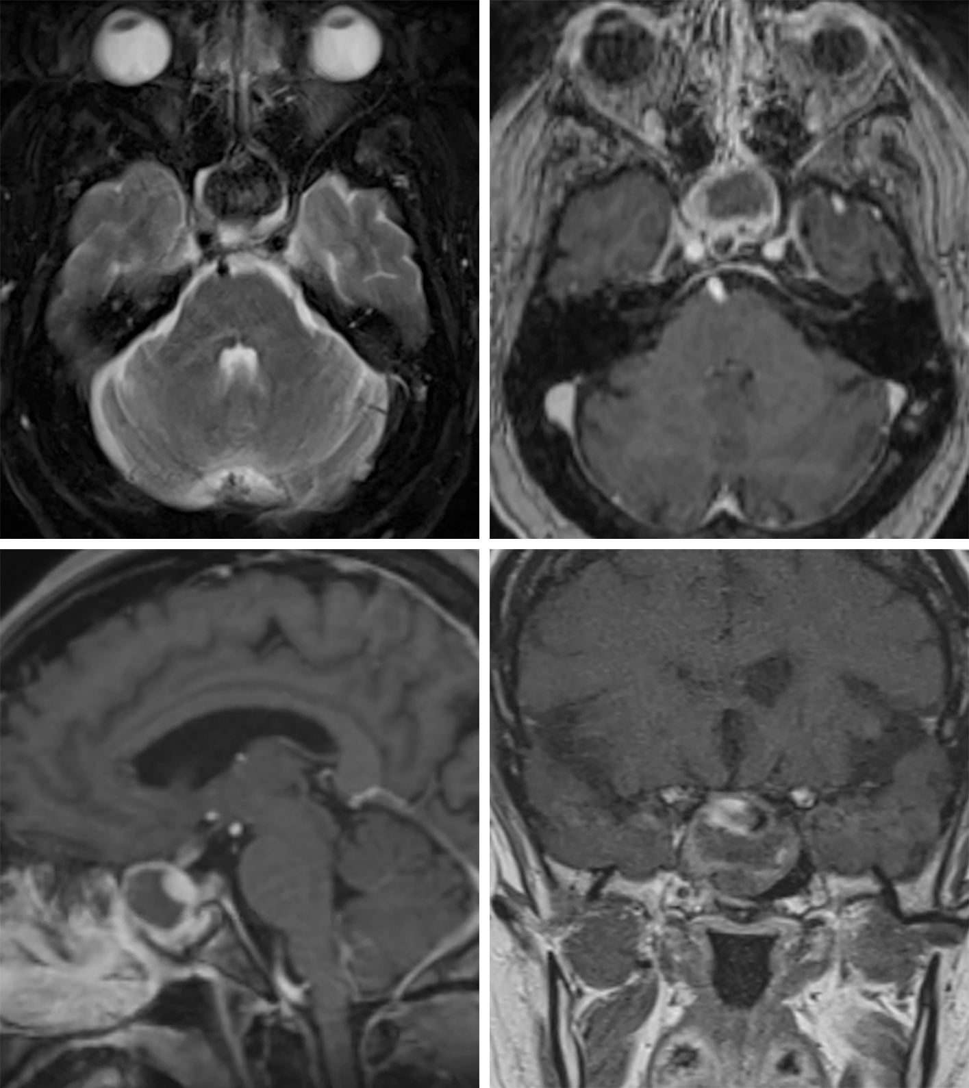 Figure 3: This craniopharyngioma demonstrates typical low T2 signal intensity centrally (top left), indicating highly proteinaceous content. The lesion appears to arise from the sella and demonstrates a typical, somewhat complex peripheral and septated enhancement pattern after contrast administration (top right, axial; bottom left, sagittal; bottom right, coronal). (Bottom Right) The superior cystic component also demonstrates a mix of signal intensities that also likely reflects complex proteinaceous contents.