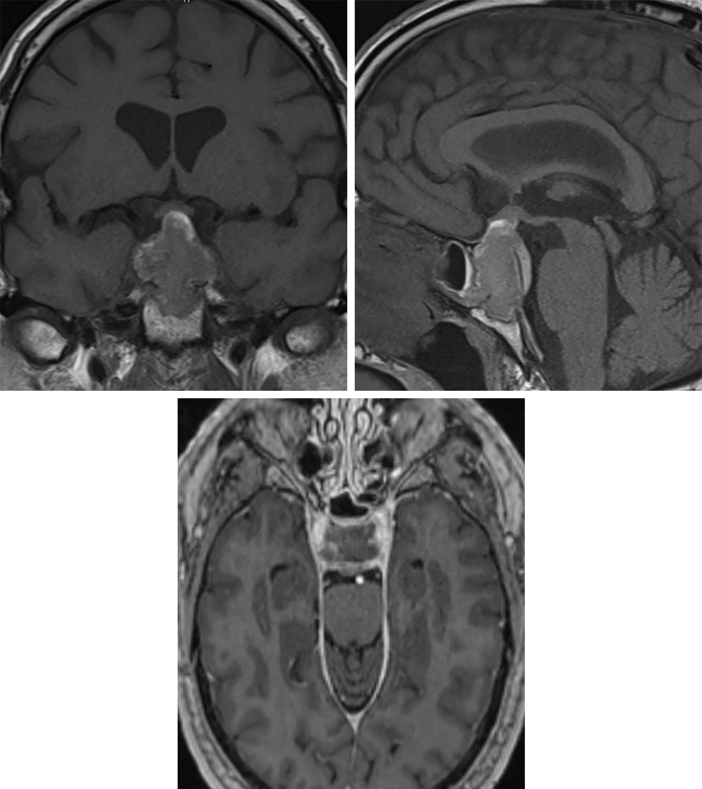 Figure 4: This craniopharyngioma illustrates intrinsic hyperintensity on T1-weighted imaging, even without intravenous contrast (top left, coronal; top right, sagittal), which reflects the cystic proteinaceous content and peripheral calcifications. (Bottom) The axial postcontrast images demonstrate that the center of this lesion is nonenhancing cyst or necrosis, with only a thin rim of peripheral enhancement after contrast administration. This tumor grows superiorly from the region of the sella and contacts and lifts the optic chiasm (top left and top row right), which puts the patient at risk for visual impairment.
