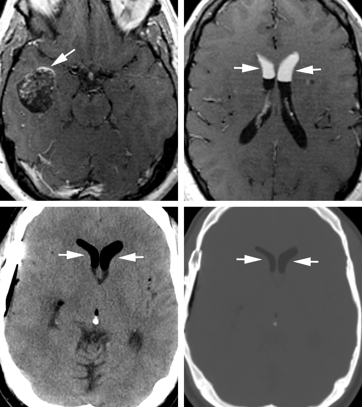 Figure 1: 34-year-old man presenting with dizziness and migraine headaches. (Top Left) Contrast-enhanced T1-weighted image demonstrates a heterogeneous-appearing mass in the right temporal lobe demonstrating areas of hyperintensity both internally and in the periphery (arrow). These areas were also bright before the administration of contrast, implying blood products or fat. (Top Right) The similarly bright material layering nondependently in the frontal horns of the lateral ventricles (arrows) represents fatty material (sebum) due to rupture of the cyst/tumor. Postoperative head CT (bottom left) also demonstrates this fat-density material in the frontal horns (arrows) that can be easily mistaken for postoperative pneumocephalus unless window/level adjustments are properly made and evaluated (bottom right, arrows).