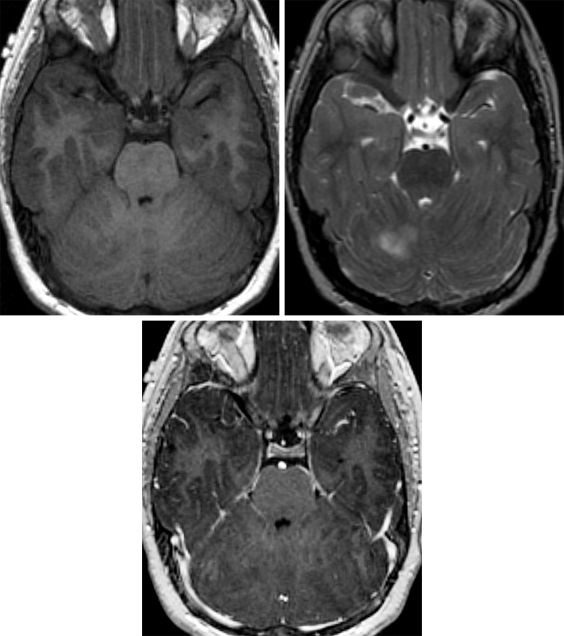Figure 1: (Top Left) A disorganized appearance to the cerebellum is typical in this dysplastic cerebellar gangliocytoma, barely visible on T1WI. (Top Right) These lesions are often associated with variable degrees of T2 hyperintensity and enhancement. (Bottom) This patient's lesion demonstrated no enhancement on T1WI postcontrast imaging.